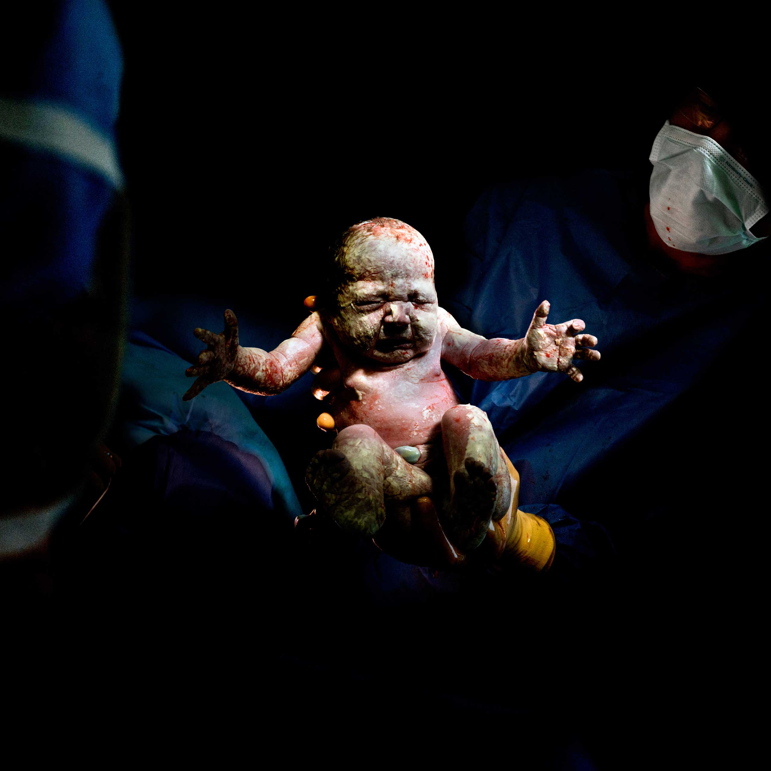 Nominated in the Portraiture category. Christian Berthelot's work on children born by c-section.
