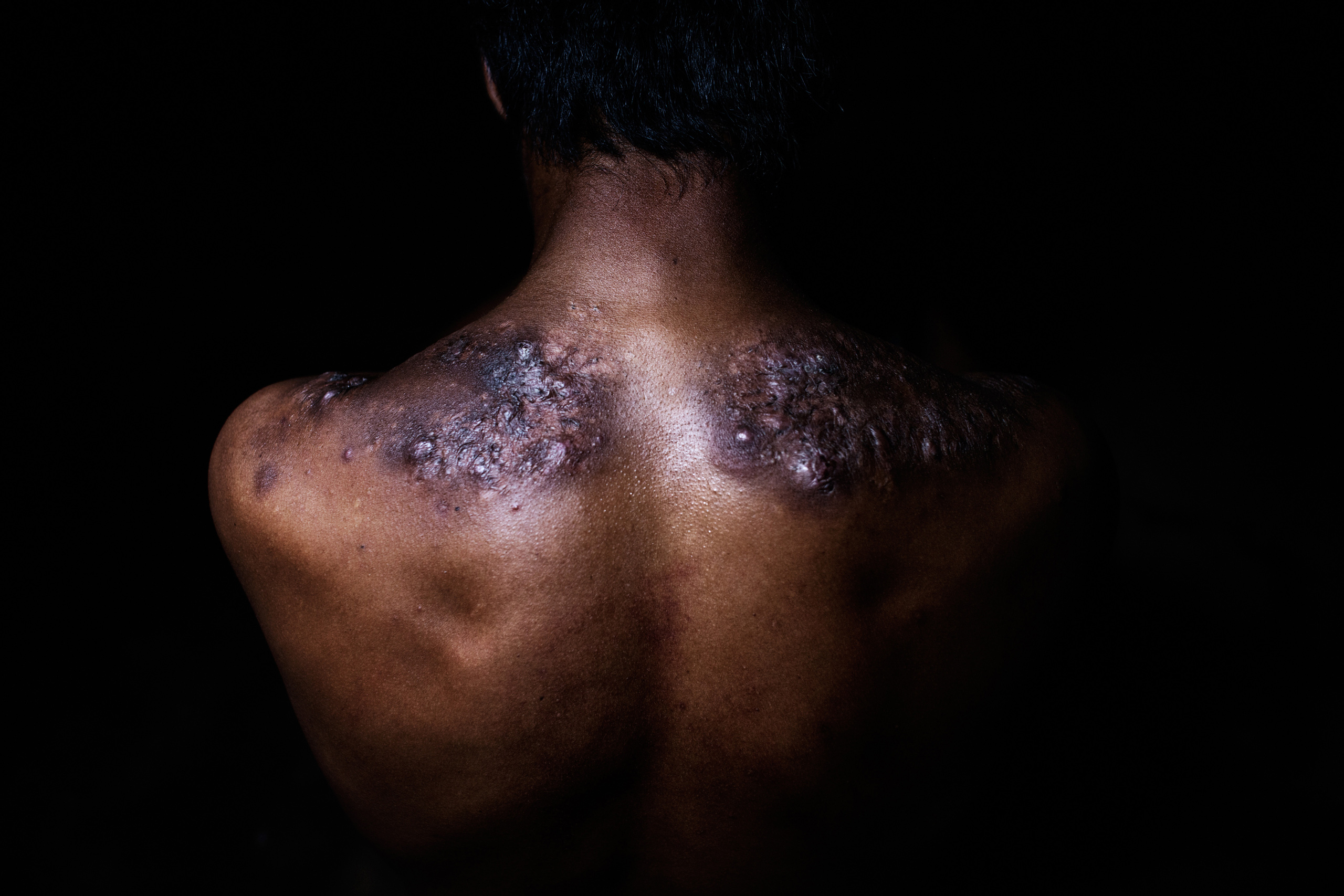 Suwono, 33, shows damage to his back due to carrying the heavy loads, Oct. 30, 2014.