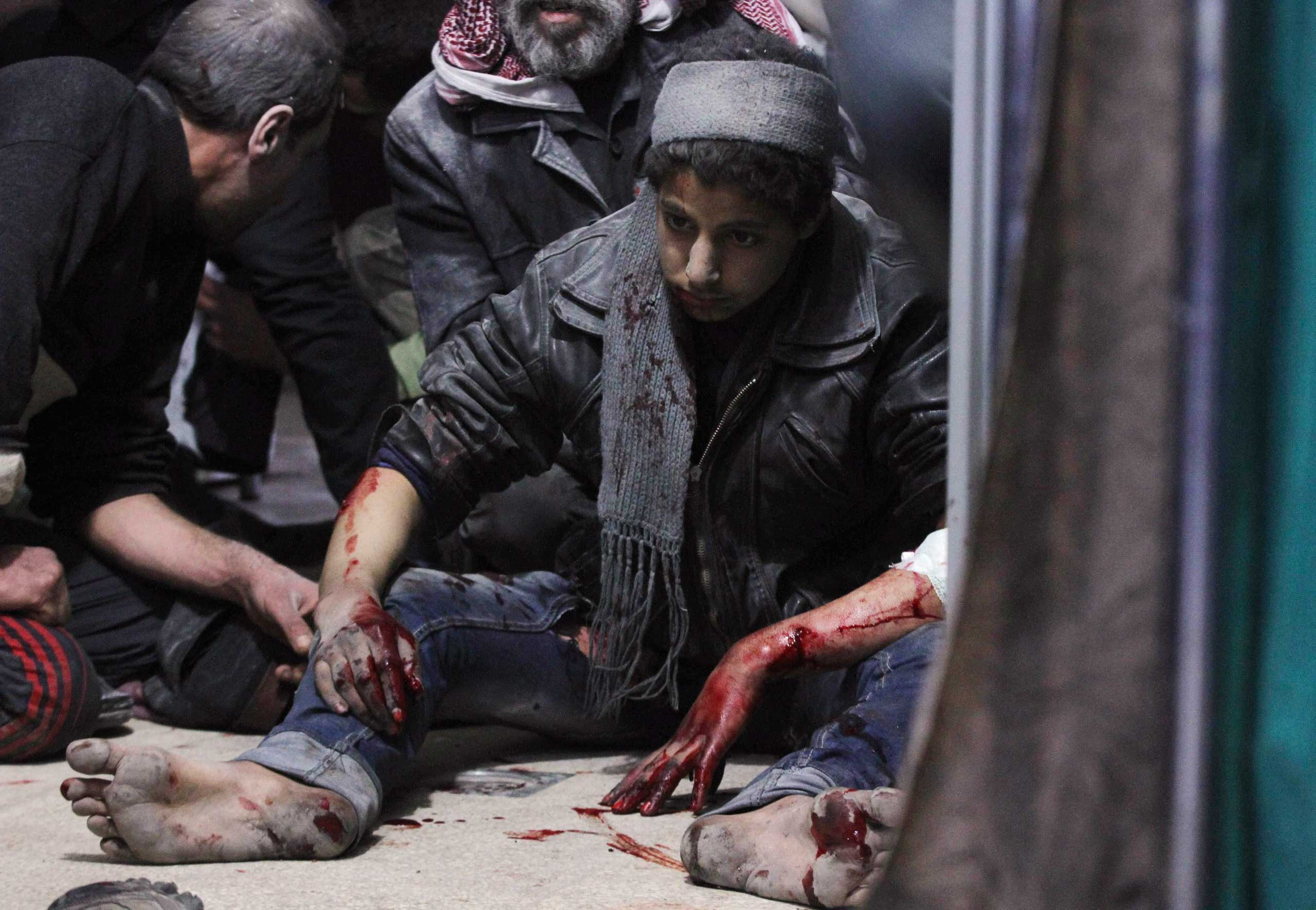 An injured civilian sits inside a shelter as he waits to receive medical assistance after what activists said were airstrikes by forces loyal to Syria's President Bashar Assad in the Douma neighborhood of Damascus, Feb. 9, 2015.