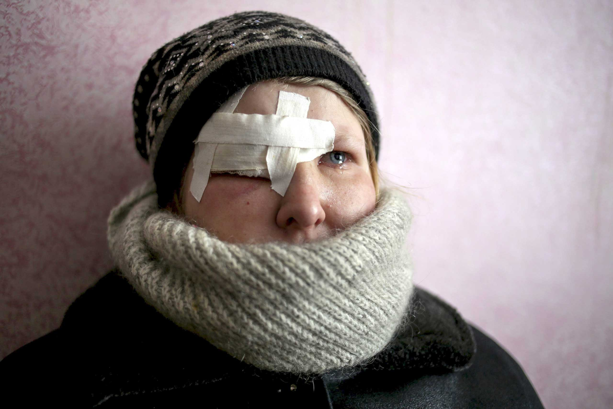 Yulia Novomlynets, 18, waits in a line to receive the humanitarian aid in the local House of Culture, which is used as a bomb shelter in Mironovka village, Feb. 17, 2015.