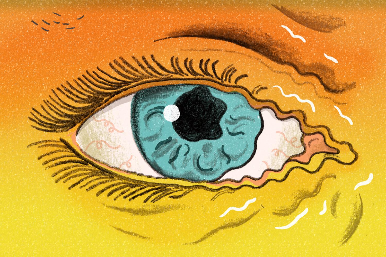 Eye Twitch: Why Does My Eye Twitch? | Time