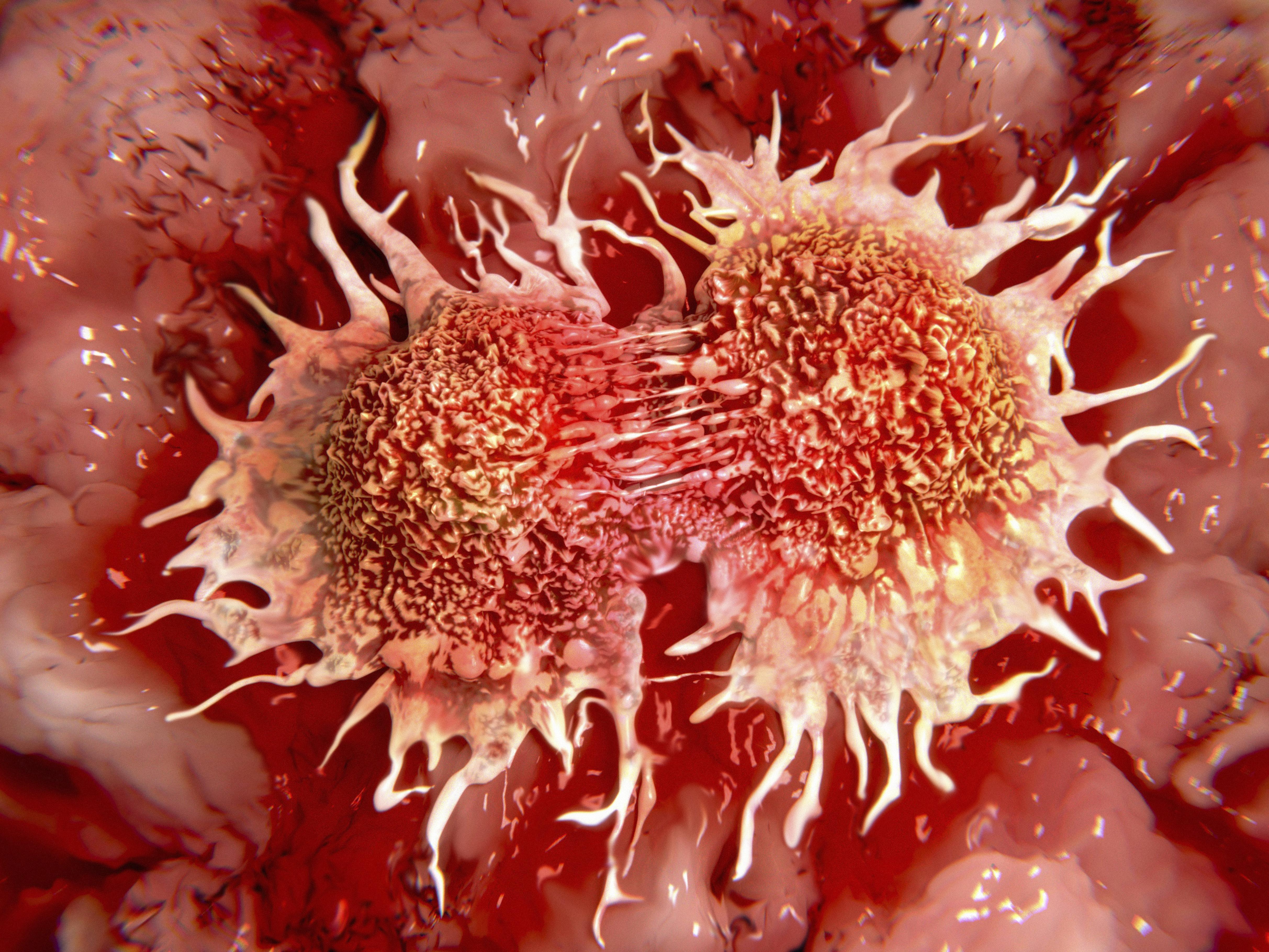 Illustration of cancer cells in middle of dividing