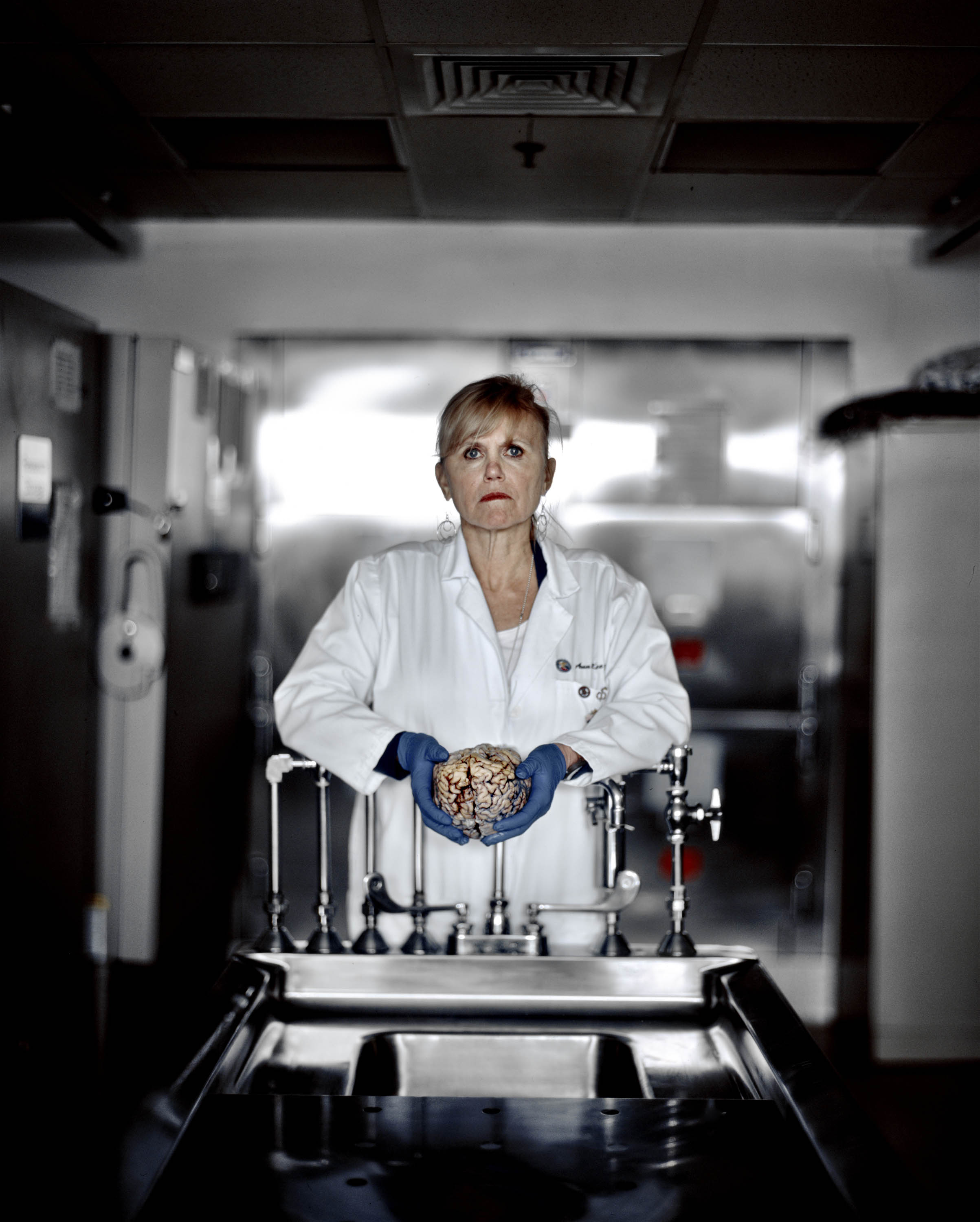 Dr. Ann McKee holds a research sample at a VA-hospital brain repository in Bedford, Mass.