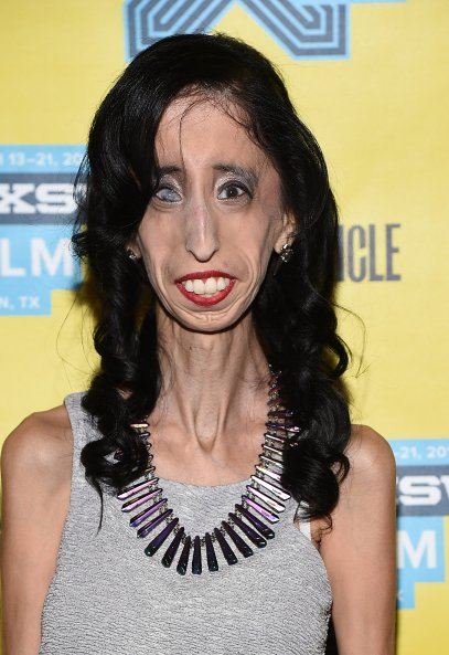 They Called Her The World S Ugliest Woman It Only Made Her Stronger Time