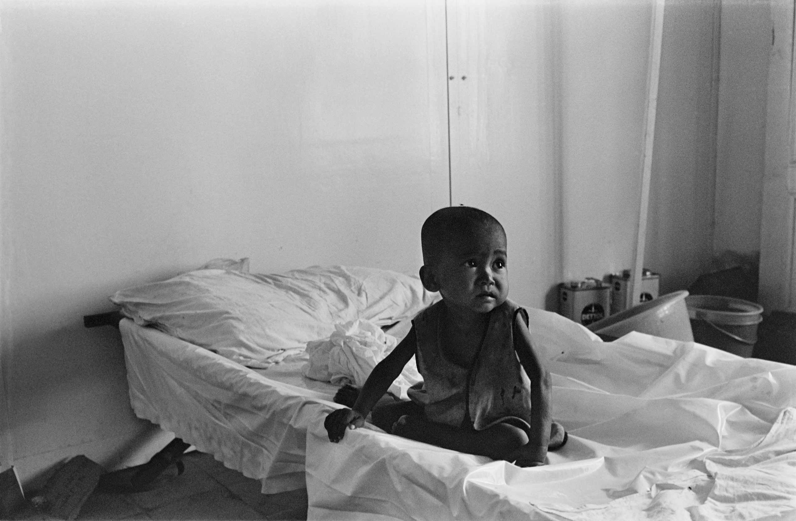 Young Cambodian child at a hospital in Phnom Penh, in March 1975.