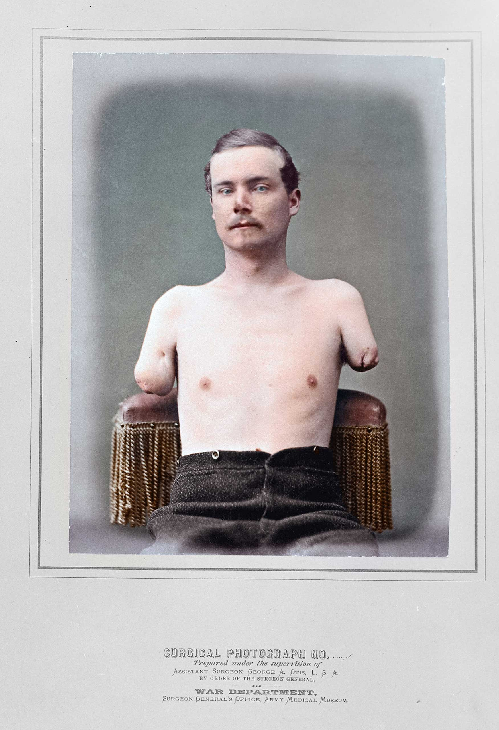 A surgical photo from the Surgeon General's War Department shows an injured soldier with both arms amputated.