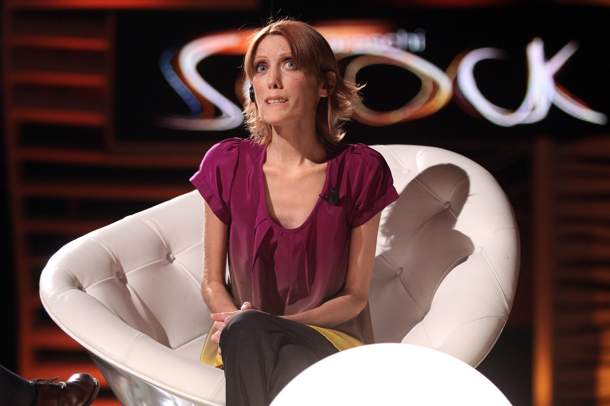 Isabelle Caro attends the Barbareschi Sciok Italian TV Show at La7 Studios on March 5, 2010 in Rome, Italy.