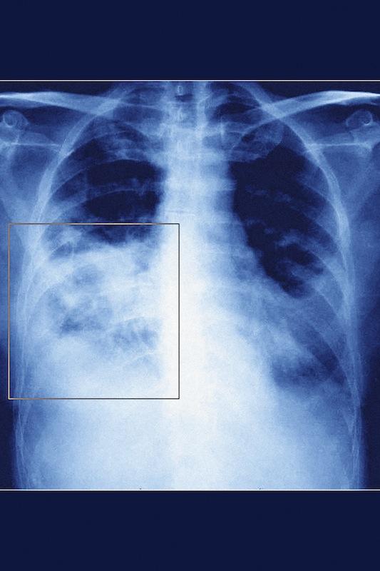 Pneumonia, Pneumocystis Carinii