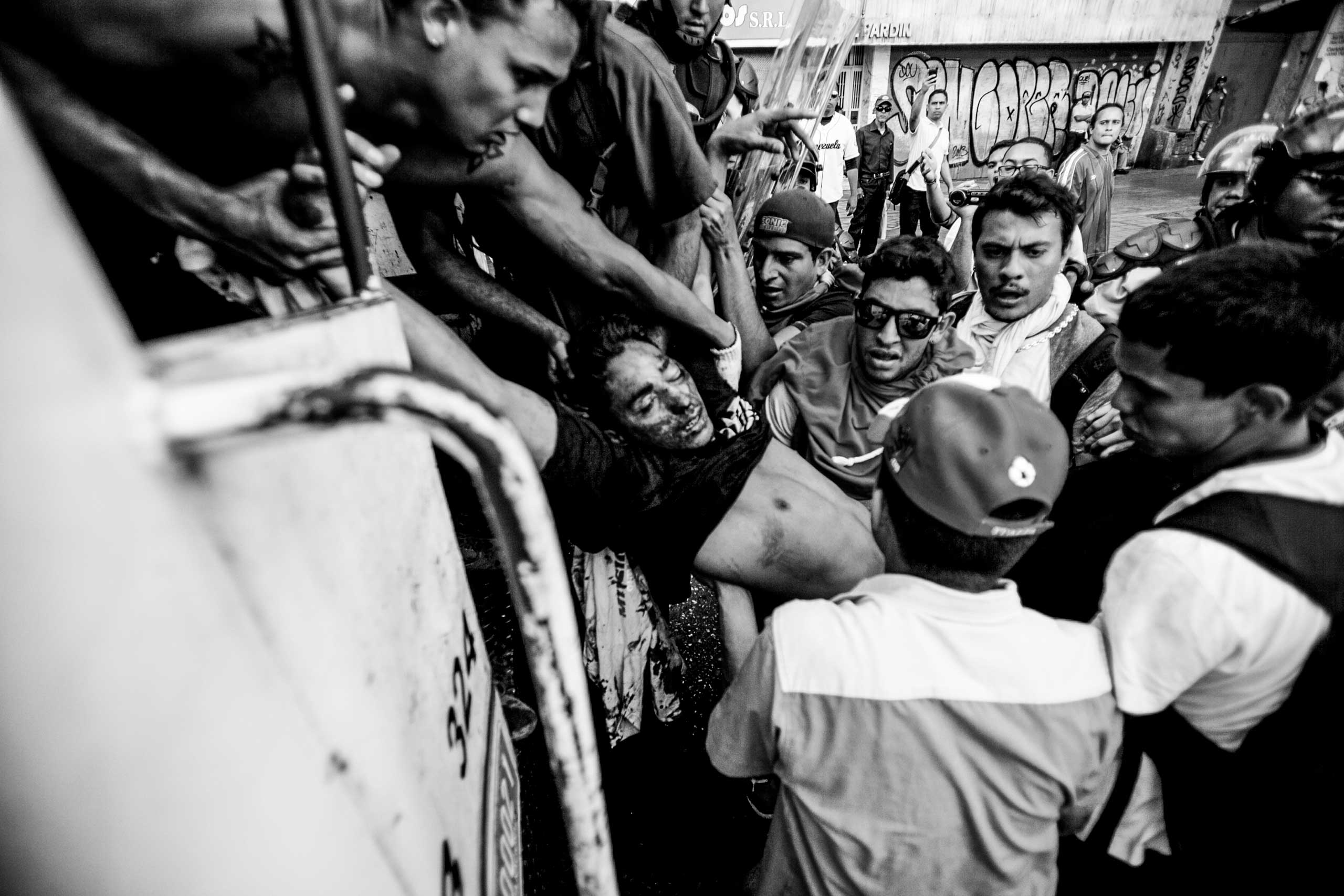 Student demonstrator Bassil Da Costa, who was shot in the head, is carried to a police vehicle after clashes broke out between opposition protesters and security forces. Caracas, February 2014.