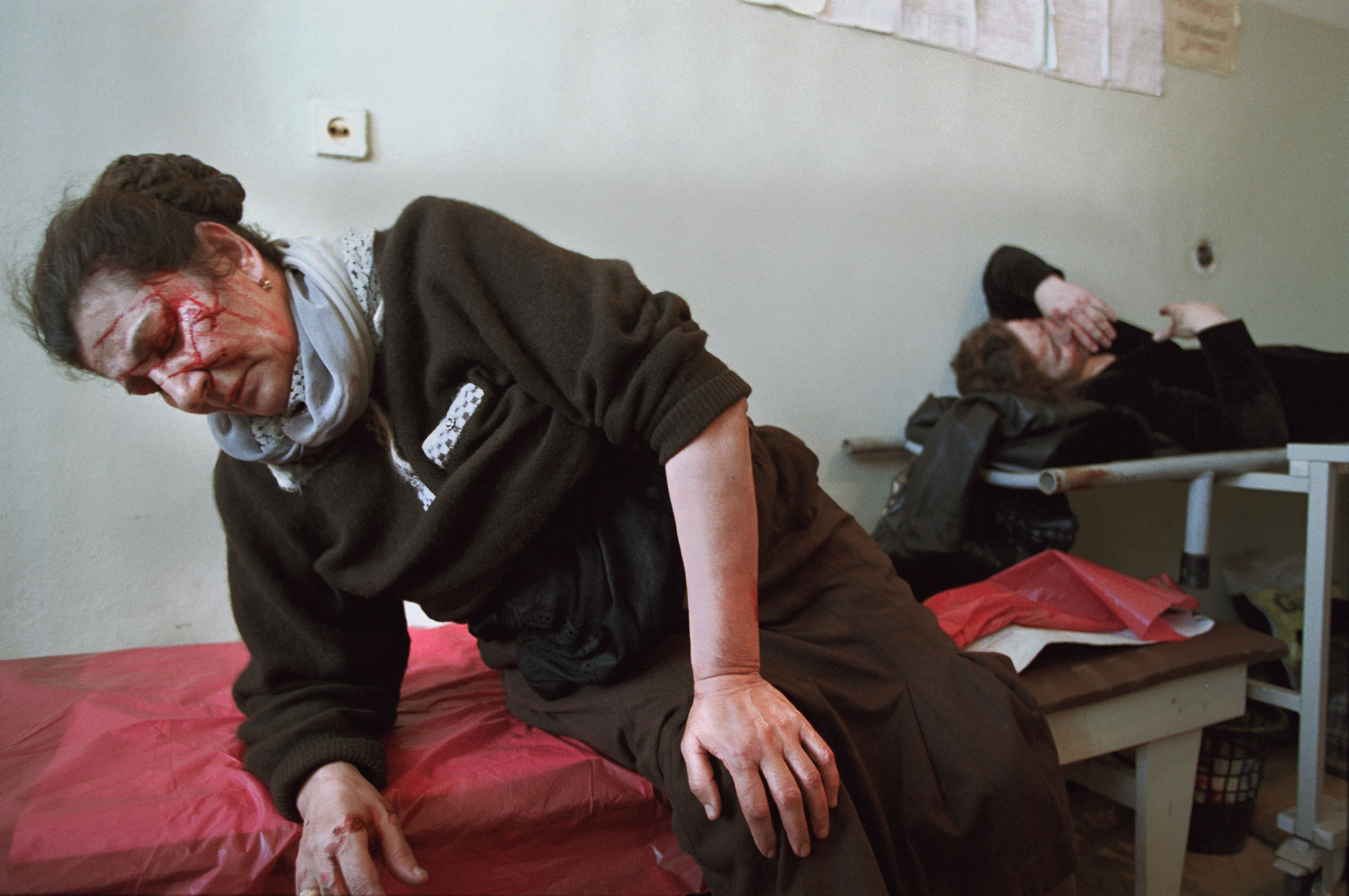 Civilians are treated at a  hospital in Grozny, Chechnya, March 2002, after a Russian Army APC ran into a civilian bus.