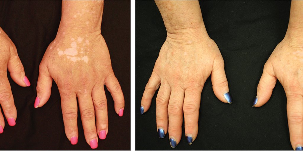 Vitiligo Existing Drug Brought Pigment Back To Patient Time