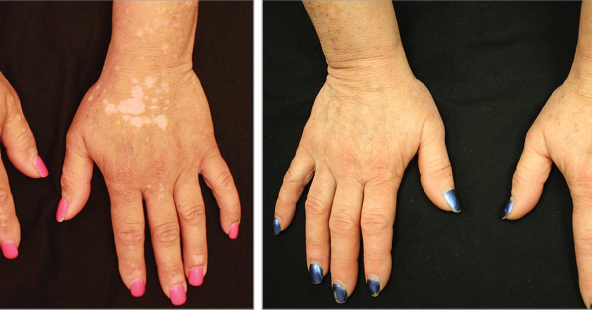 Vitiligo Existing Brought Pigment