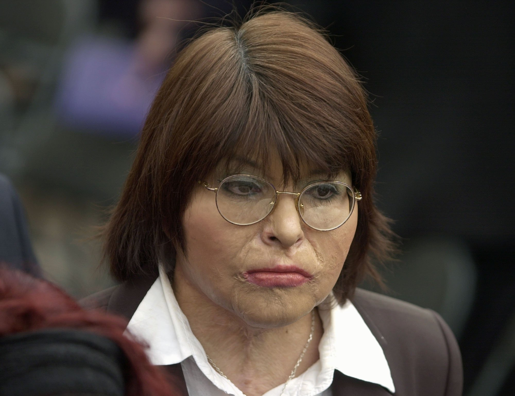 Chilean Carmen Gloria Quintana attends a ceremony marking the 30th anniversary of the Sept. 11 military coup lead by Gen. Augusto Pinochet at the government palace La Moneda, in Santiago on Sept. 11, 2003.