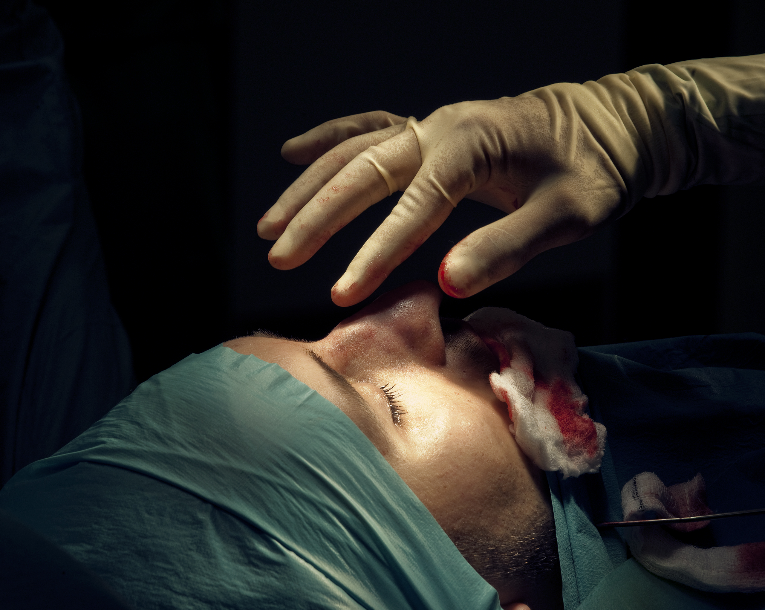 A 25-year-old British man undergoes rhinoplasty surgery to reduce the size of his nose in London.                                2011