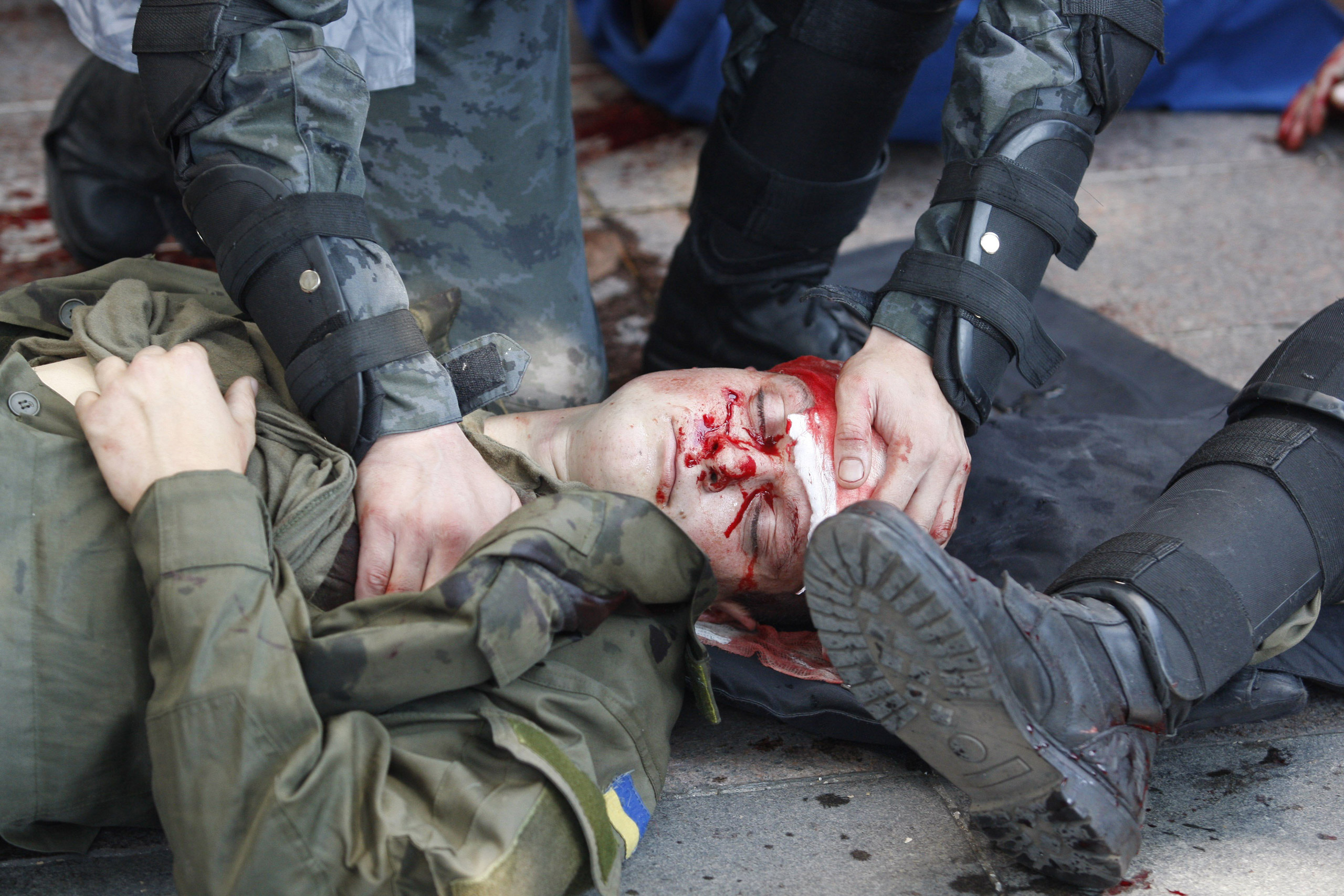 Police officers help a wounded colleague during clashes with protesters in front of the parliament in Kiev, Ukraine, on Aug. 31, 2015.