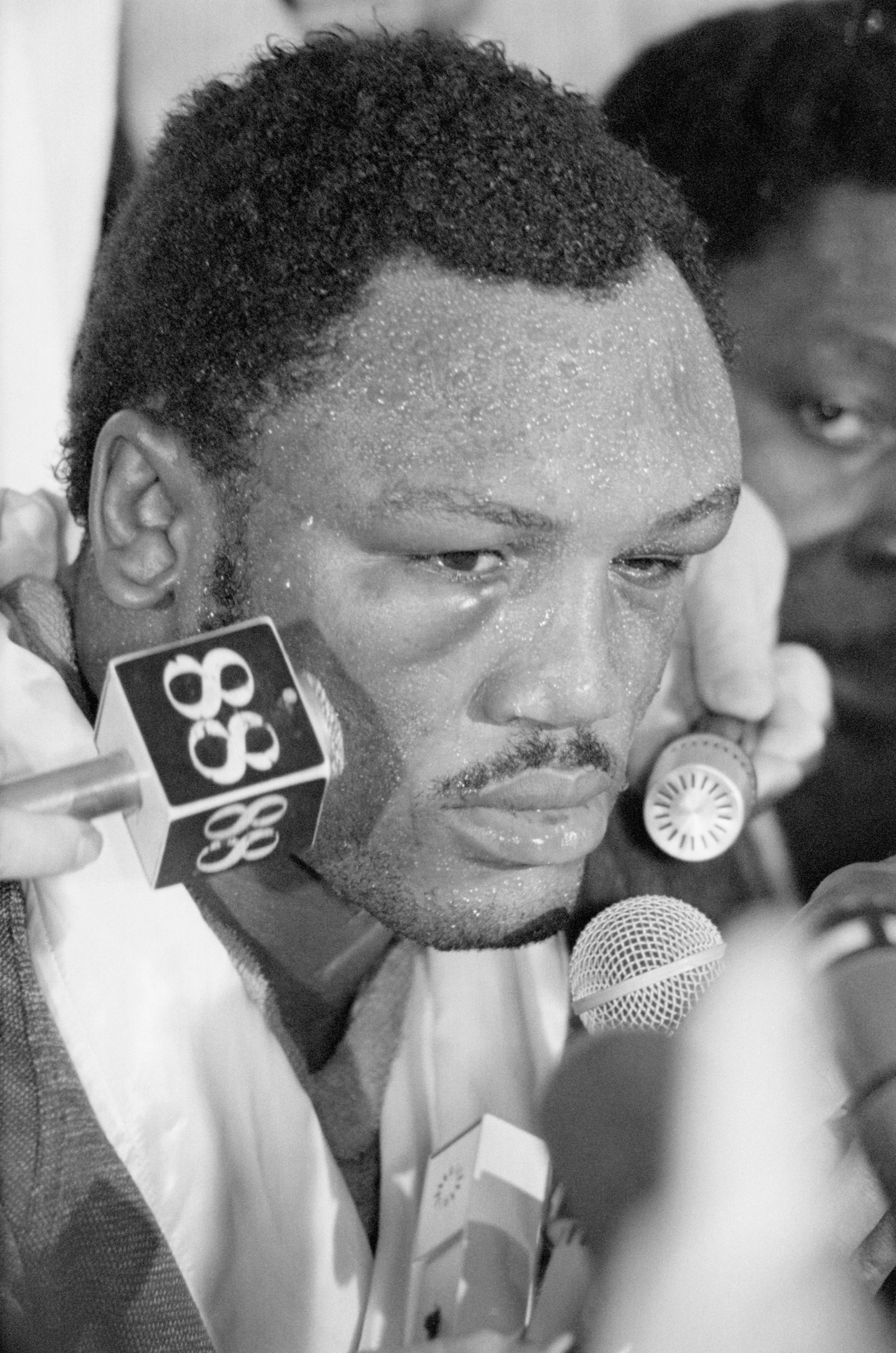Challenger Joe Frazier, showing puffed eyes, talks to members of the press after suffering a TKO in the 14th round of his 15-round heavyweight championship match against champion Muhammad Ali.  Manila, Oct. 1, 1975.