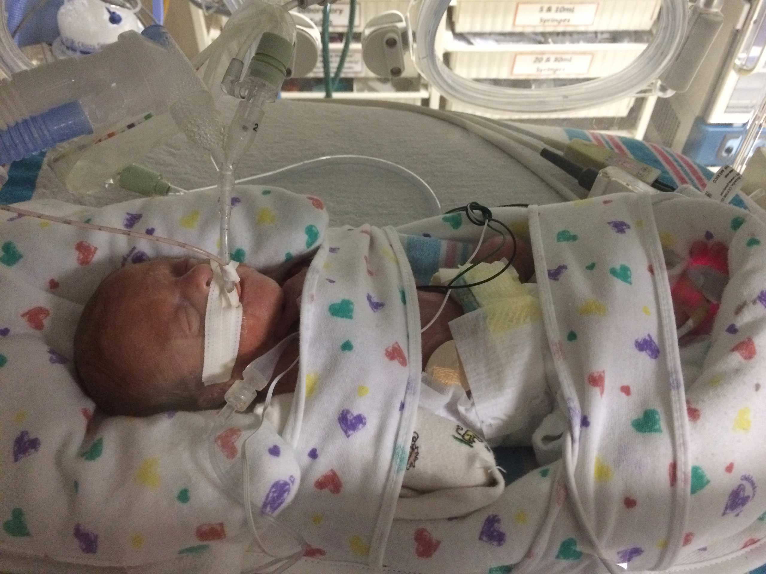 This photo provided by Emily Morgan, shows her son Haiden Morgan while in neonatal care in Miami, taken Sept. 20, 2015.