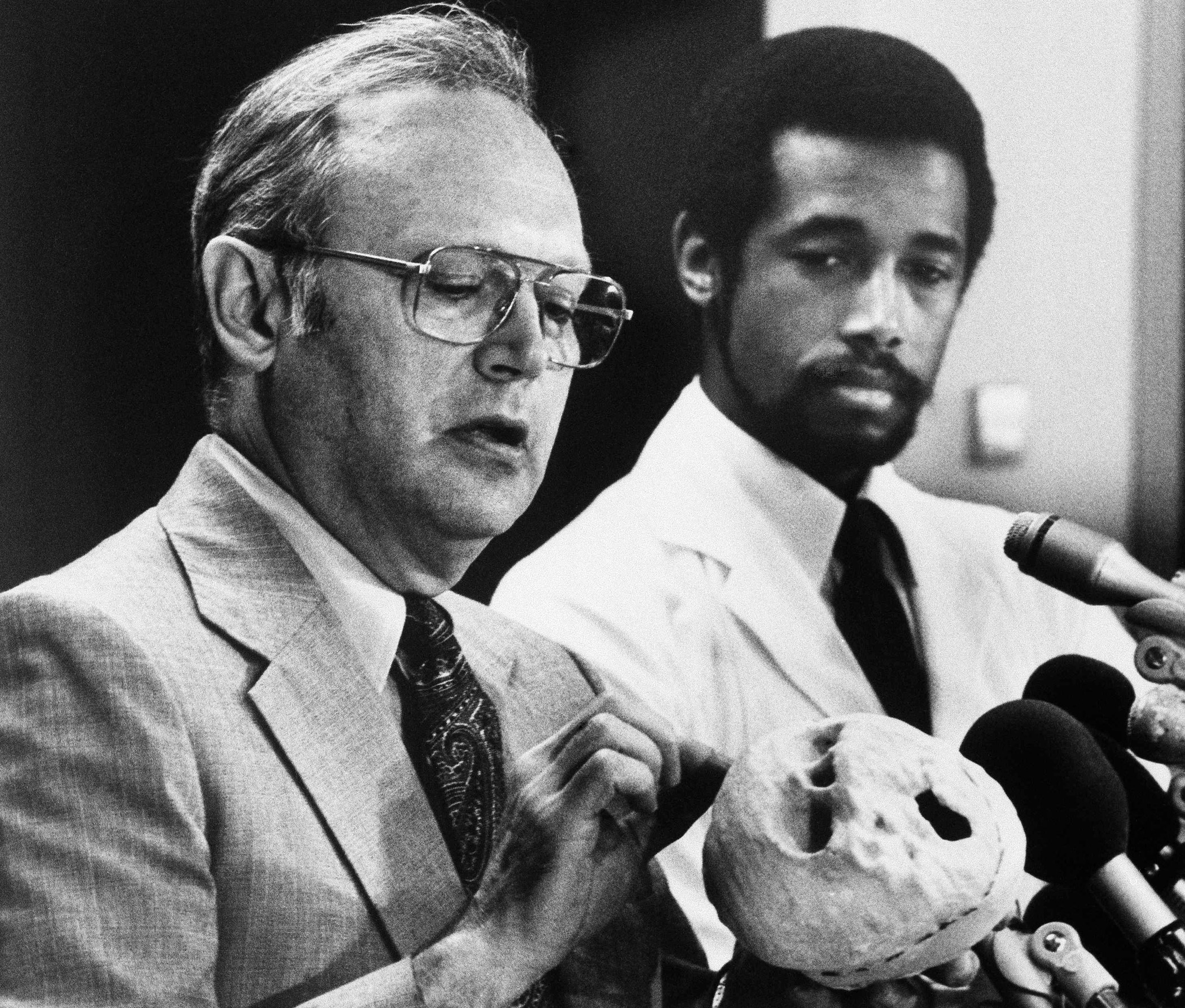 Dr. Donlin Long, director of neurosurgery, left, and Dr. Ben Carson director of pediatric neurosurgery at John Hopkins Hospital, with brain model of the Siamese twins separated in a 22-hour surgery at Hopkins, Sept. 7, 1987, in Baltimore.