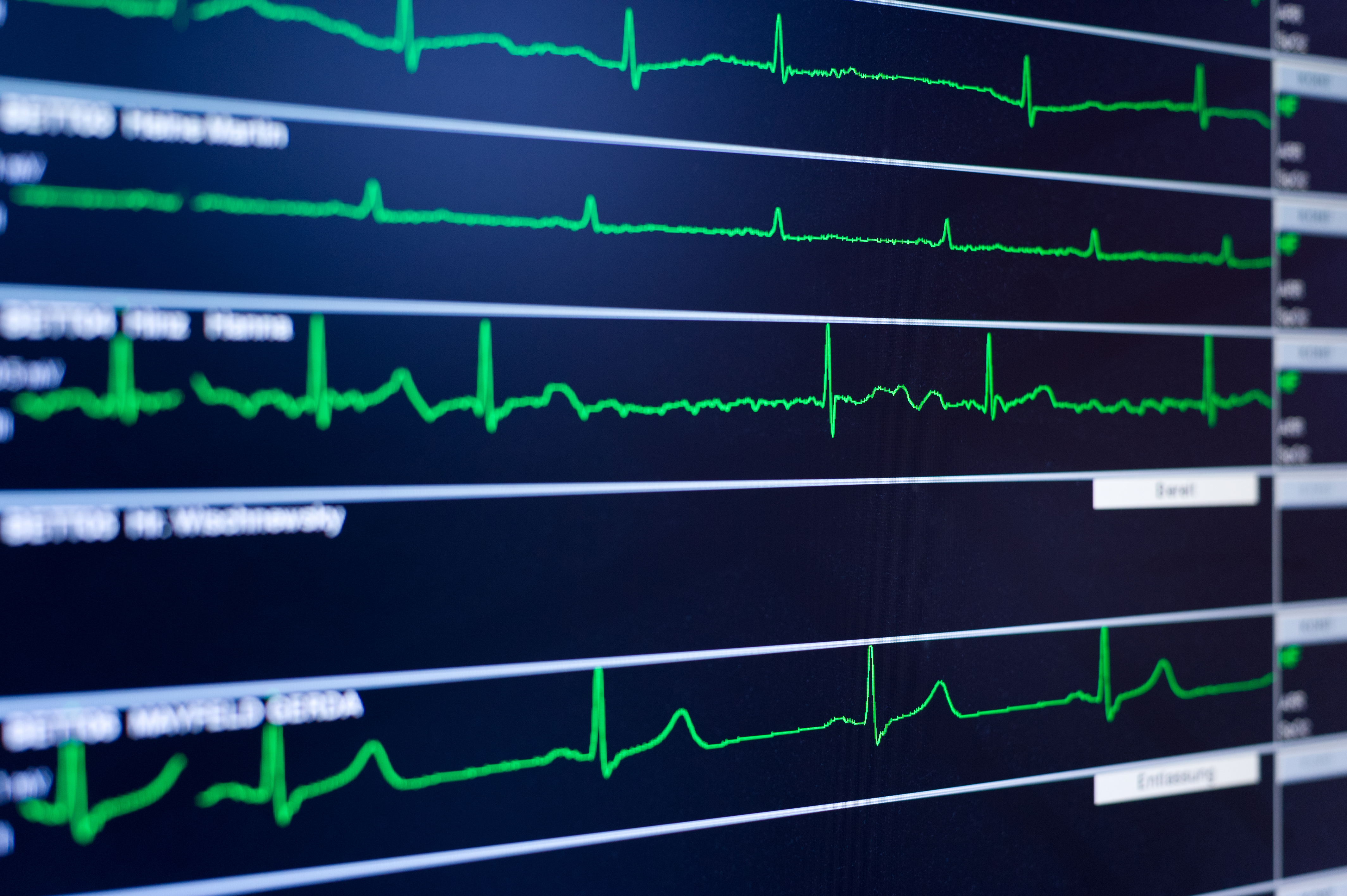 Having A Low Heart Rate Is Linked To Being A Criminal: Study | Time