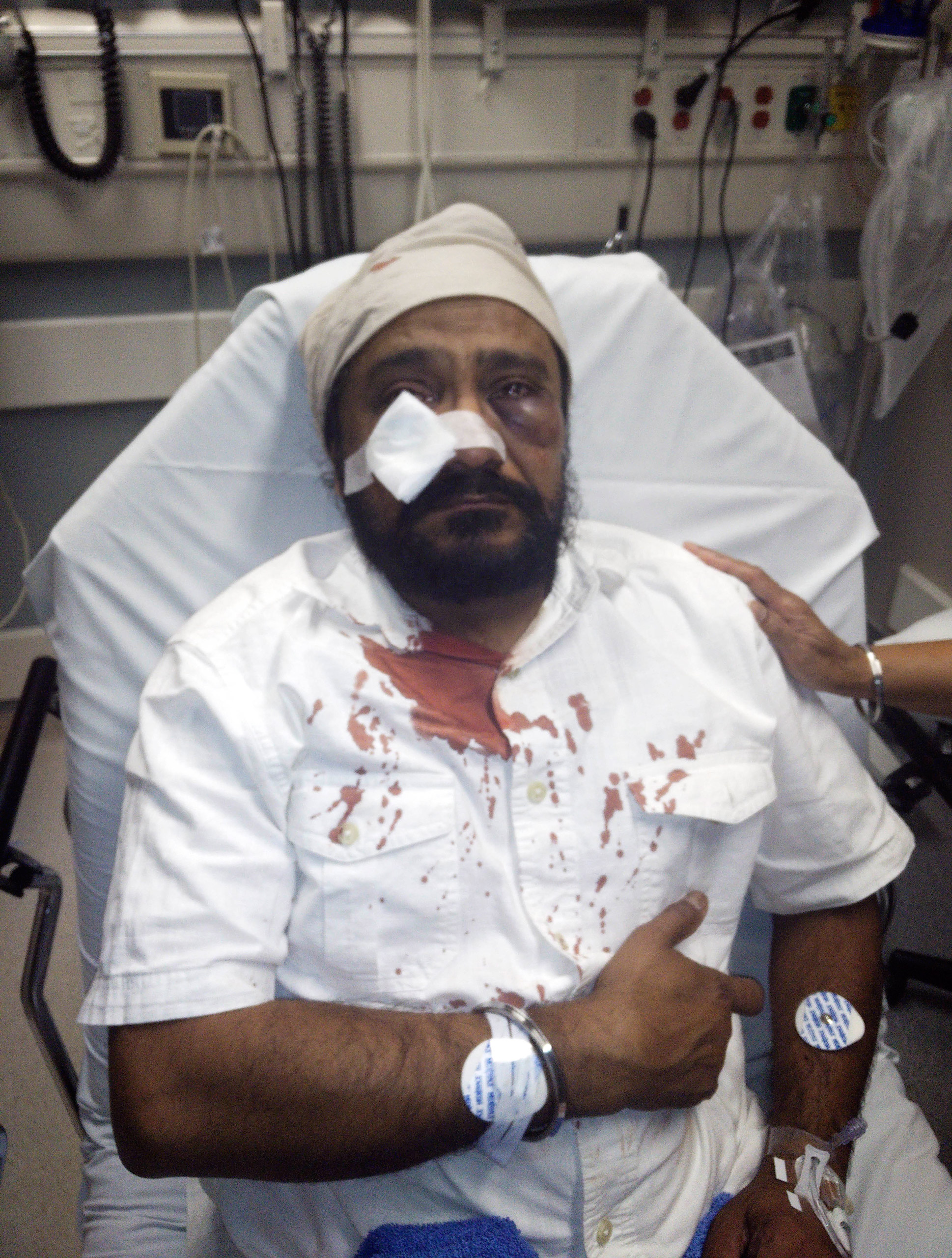 In this photo provided by The Sikh Coaliton, 53-year-old Inderjit Mukker is seen at a hospital in Hinsdale, Ill., on Sept. 8, 2015.