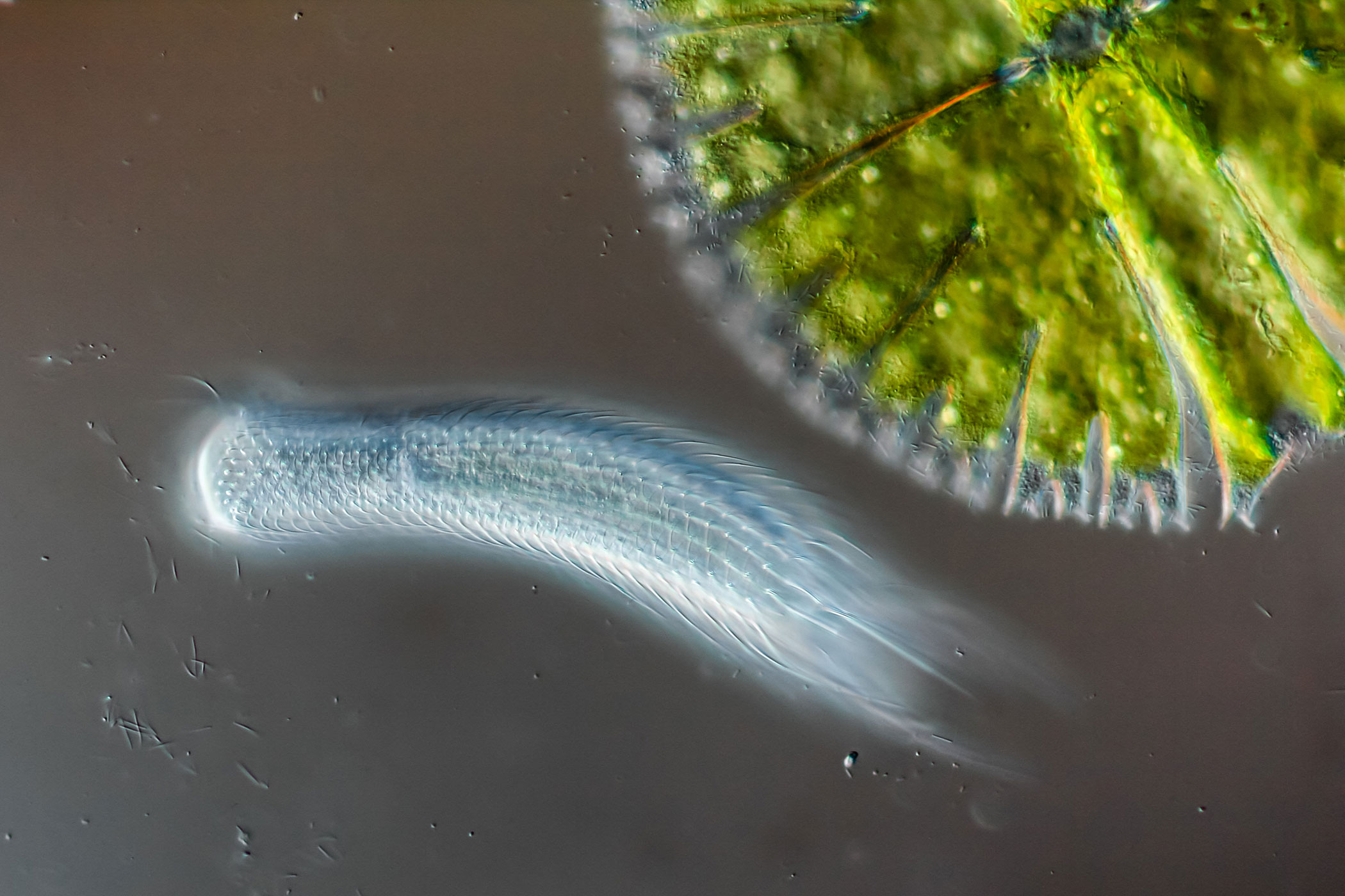 Hairyback worm (Chaetonotus sp.) and algae (Micrasterias sp.) at 400x magnification.