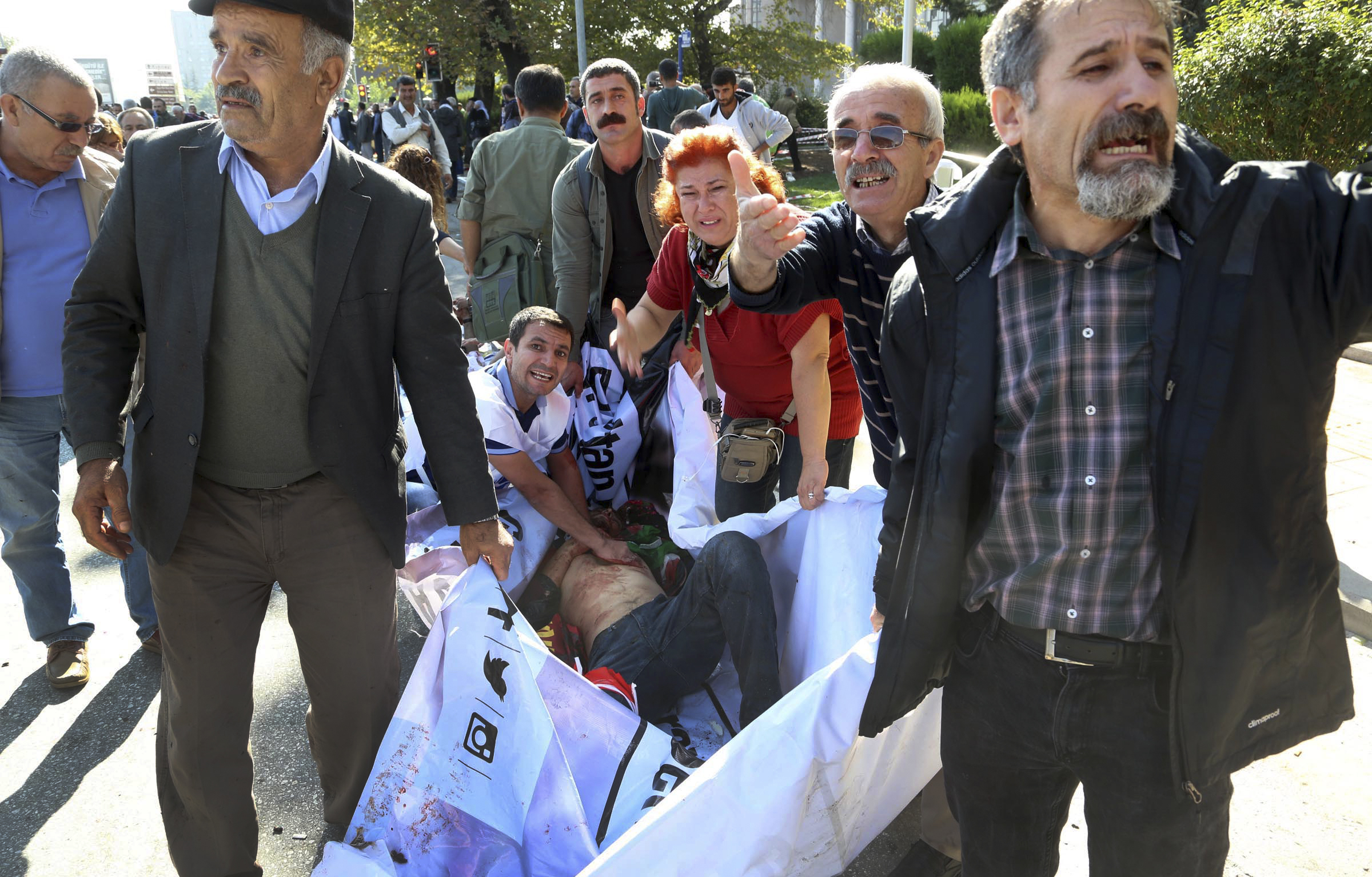 People carry a wounded person from the area of an explosion in Ankara, Turkey, on Oct. 10, 2015.