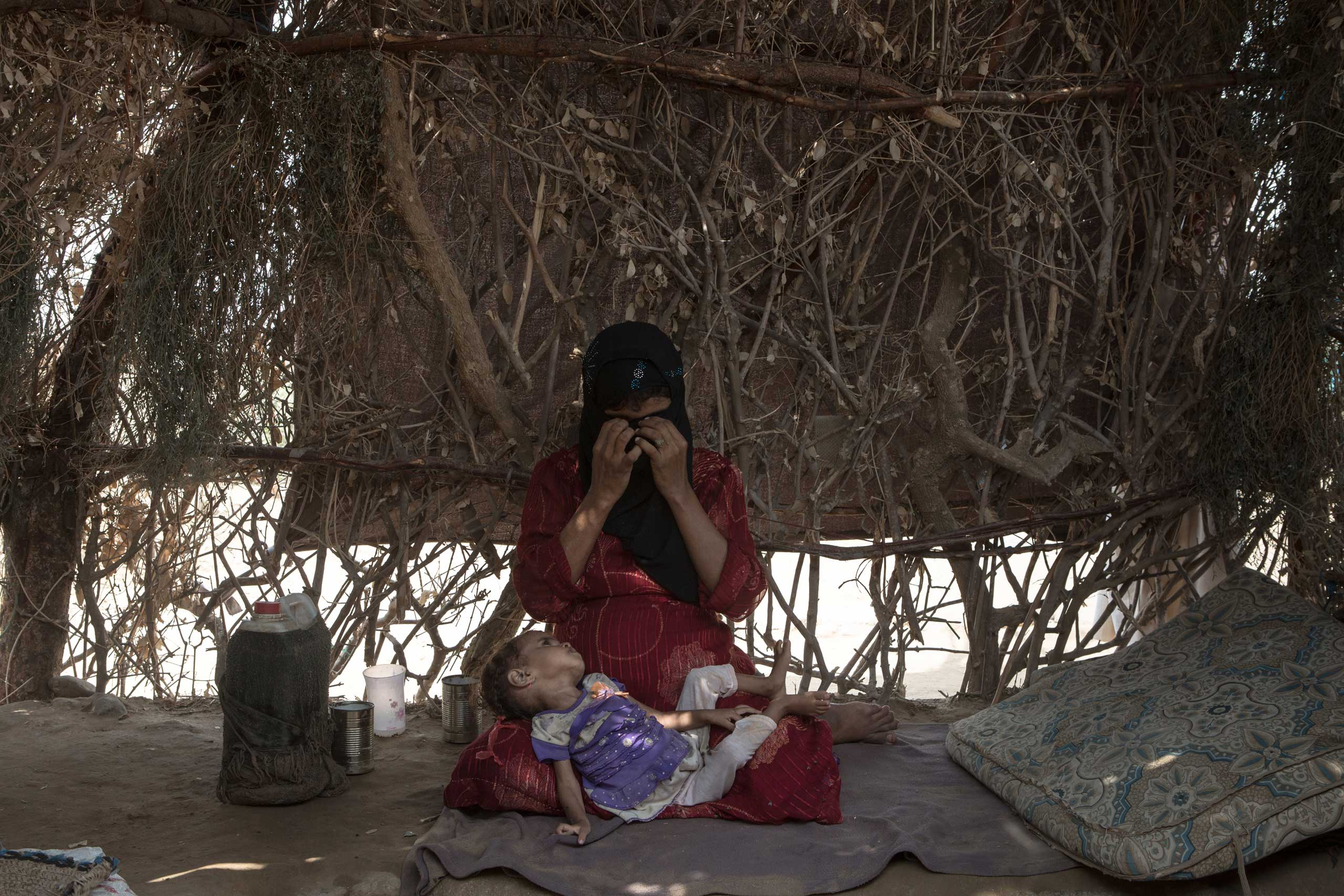 A woman and her malnourished child at the Al Majoura camp  for internally- displaced people (IDPs). Yemen is undergoing a severe humanitarian crises since airstrikes began in March, 2015.