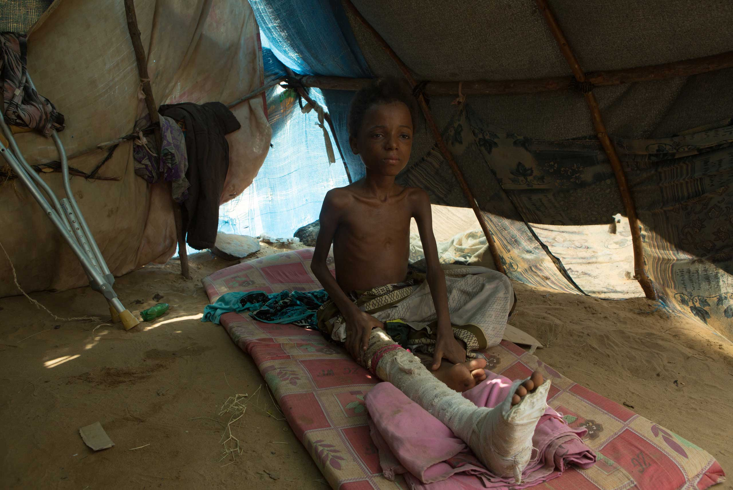 Aziz, 11, an IDP at  the Beni Hassan camp in Hajjah province. In March 2015 he was  injured during a Saudi-led airstrike at a camp for internal refugees in Al Mazraq, Aug. 20, 2015.