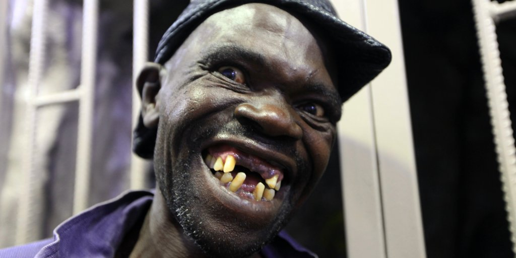 Zimbabwe's Mister Ugly Pageant Turns Violent After Upset | Time