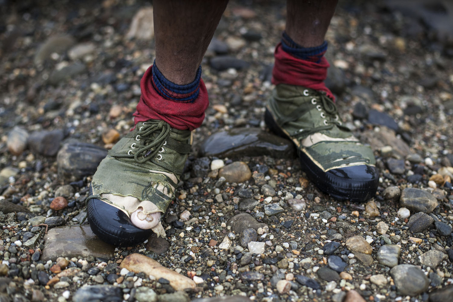 The feet of an illegal jade miner at work, Hpakant,  July 2014