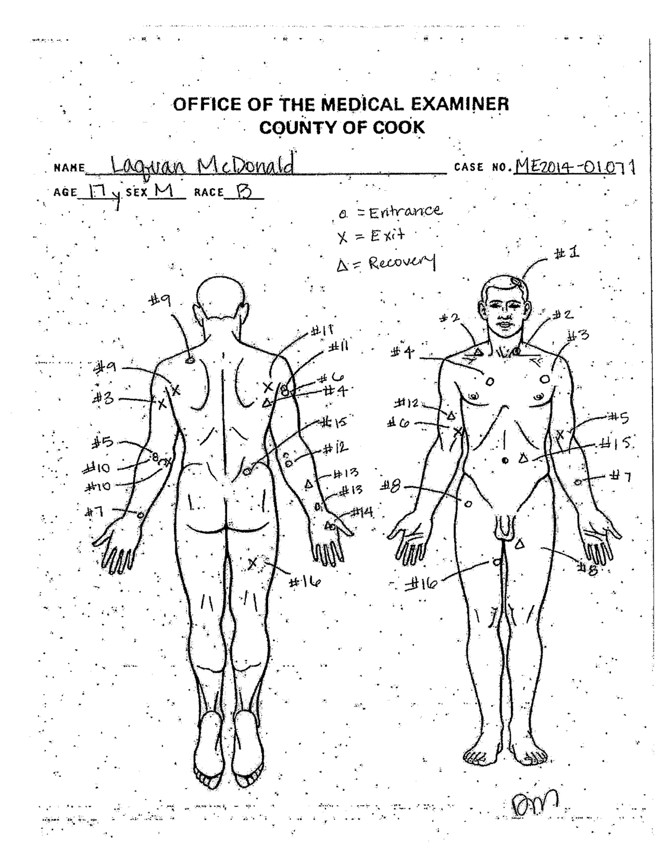 Autopsy diagram showing the location of wounds on the body Laquan McDonald, shot by a Chicago Police officer 16 times on Oct. 20, 2014.
