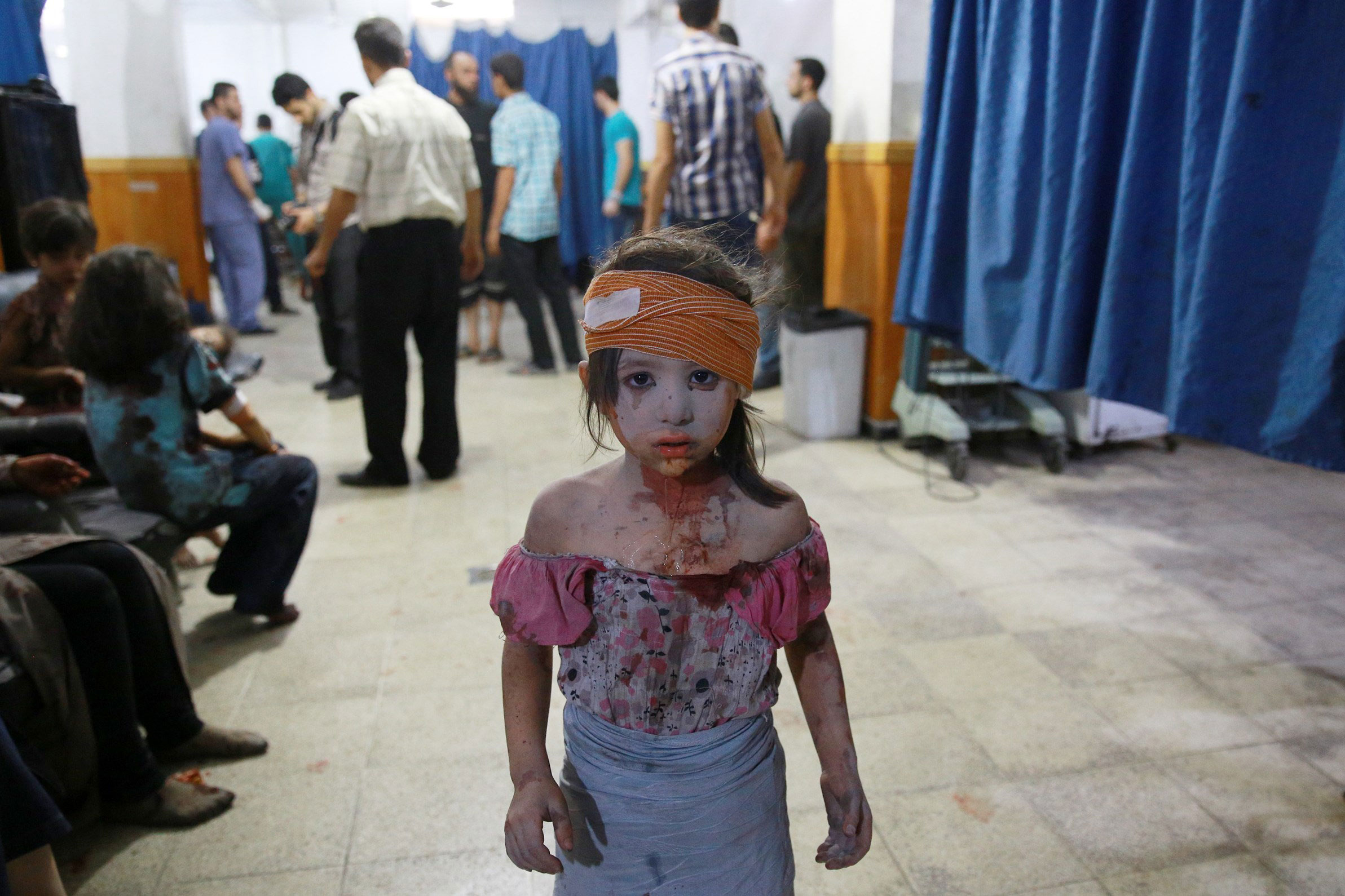 A wounded Syrian girl stands in a makeshift hospital in the rebel-held area of Douma, east of Syria's capital of Damascus, following shelling and air raids by Syrian government forces. Aug. 22, 2015.