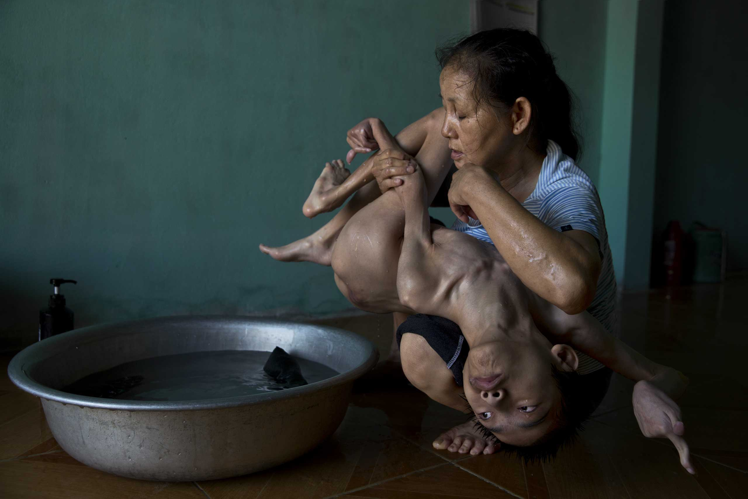 Tran Thien Nhan, with severely malformed head and diminutive body, is an Agent Orange victim in Danang, Vietnam. His mother, Ngo Thi Tinh, and grandmother, The Thi Dao, care for him.