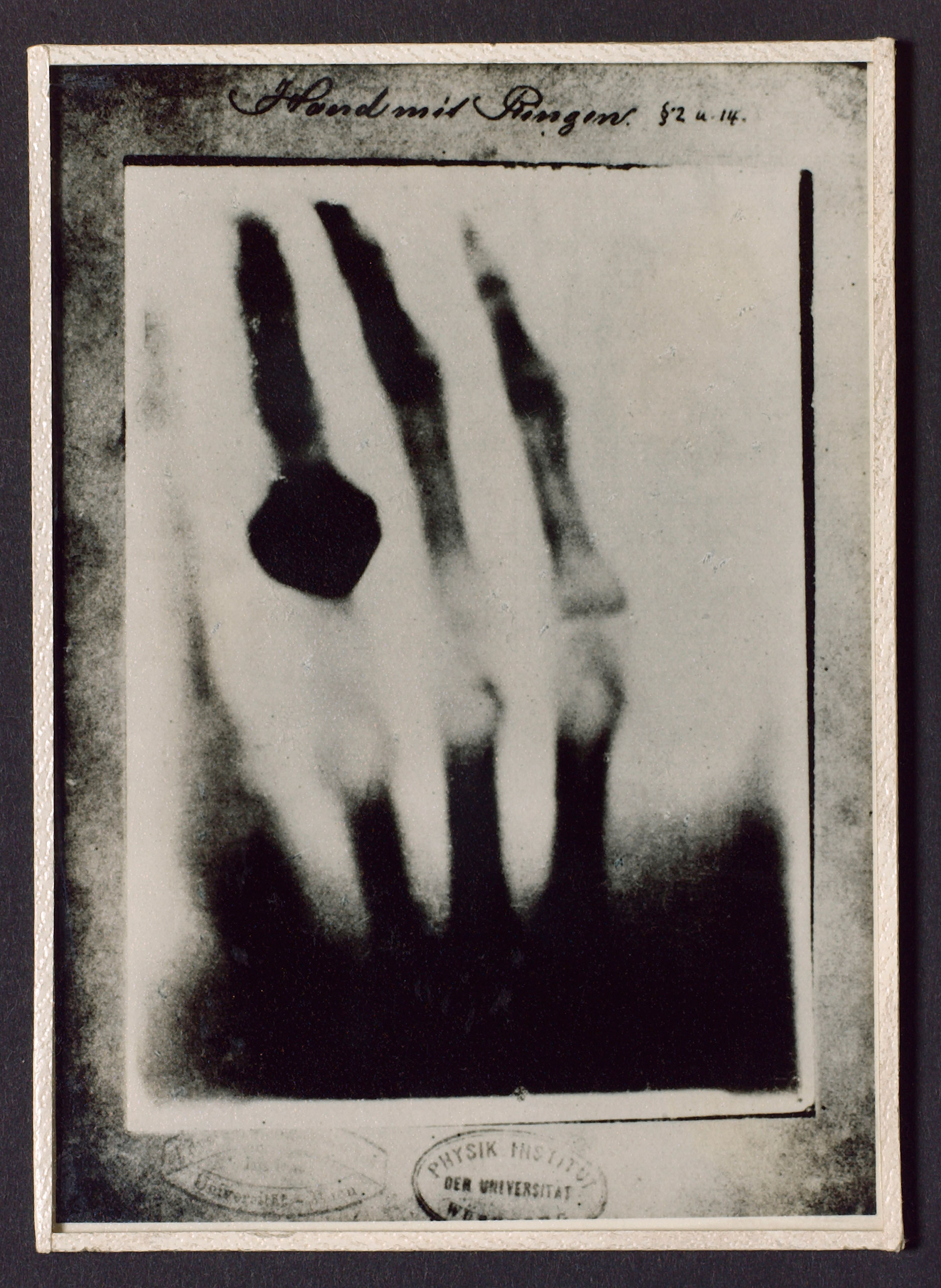 X-ray photograph taken by Wilhelm Roentgen of his wife's hand in December 1895.