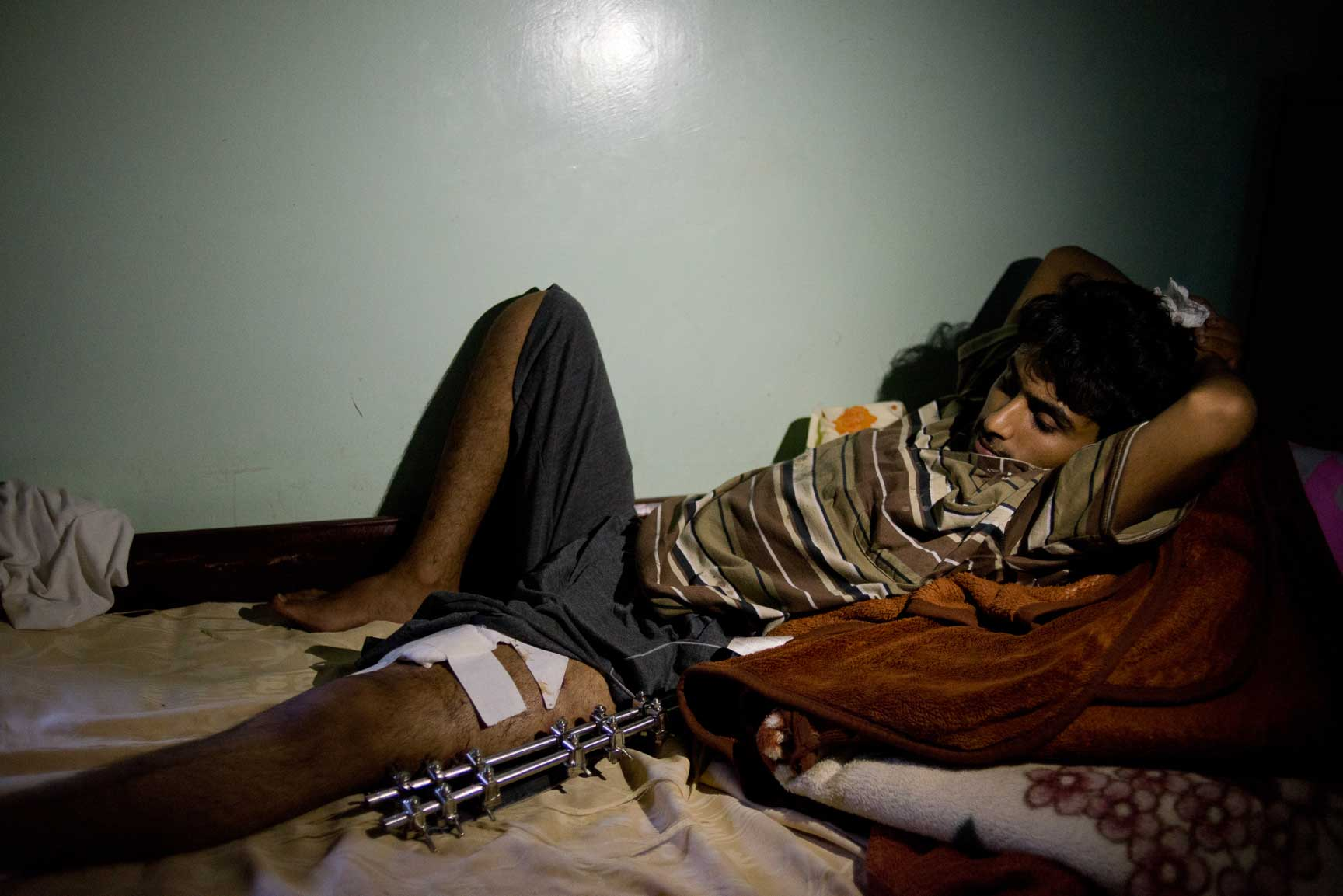 A young Yemeni man lays recovering from his injuries in Amran Hospital on Tuesday, July 7, 2015 in Amran, Yemen.