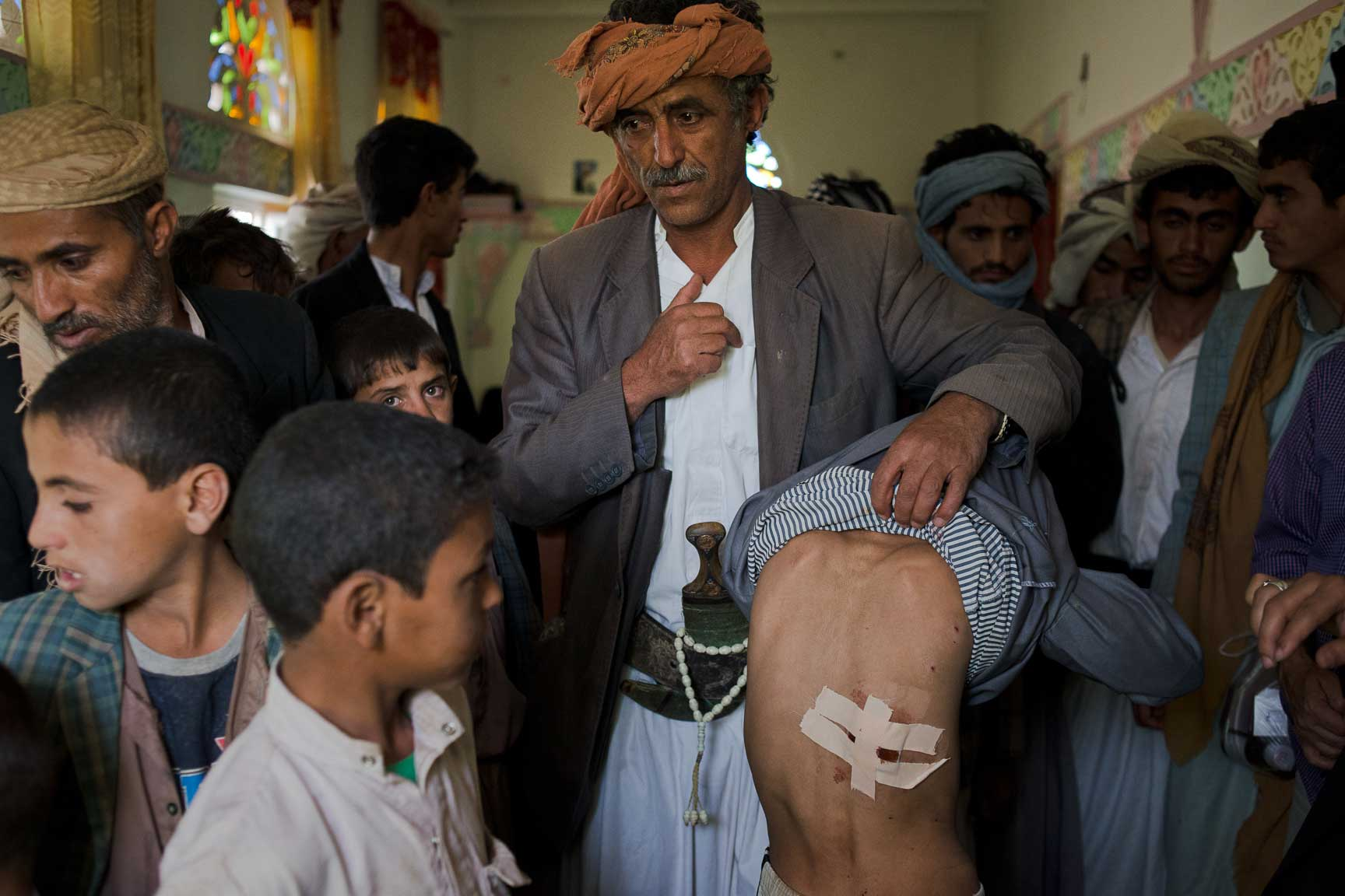 A Yemeni man shows off the wounds of a boy who was injured in a recent airstrike, Thursday July 7, 2015 in Al Joob Village, Yemen.. Two airstrikes on July 6 hit a public market near homes and a mosque and farmers selling produce on the side of the road; the two combined killed over 30 civilians.
