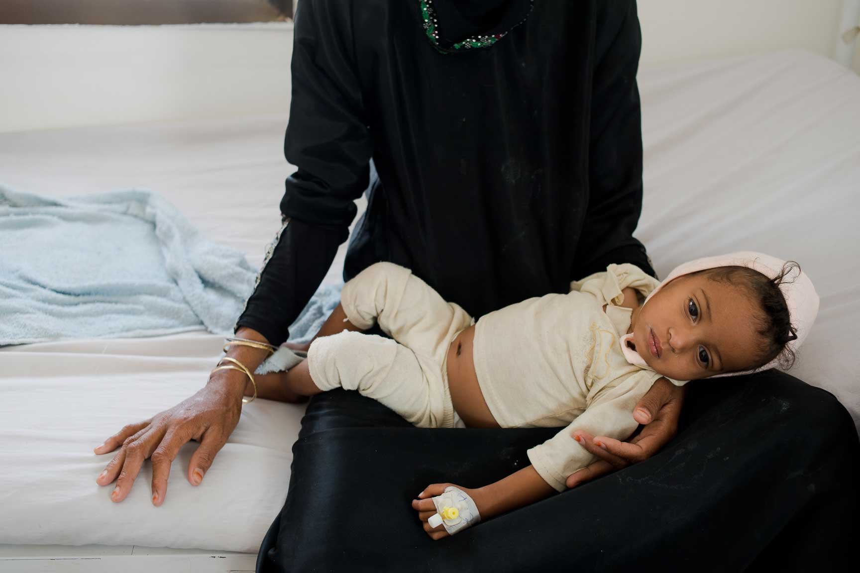 A Yemeni mother holds her malnourished daughter in the children's ward of MSF-supported al Salam Hospital on July 7, 2015 in Amran, Yemen. The mother was too malnourished to breastfeed, and couldn't afford formula or fresh powdered milk. The powder she bought turned out to be spoiled, and her daughter fell ill for weeks.