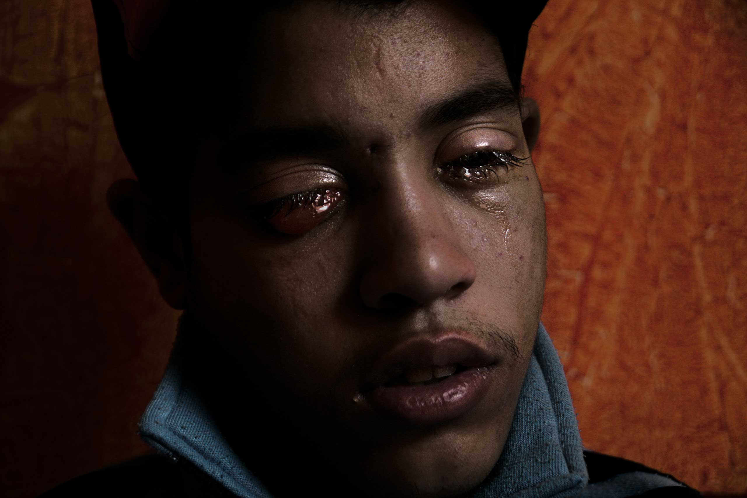 Reda Abdelaziz Mohamed was 19 in this Dec. 8, 2011 photograph. Reda (an Arabic word meaning contentment) was not crying - his left eye constantly wept, his right left blinded when a policeman fired rubber pellets into his eyes.He is one of hundreds, if not thousands, of people suffering the long-term consequences of fighting for dignity and justice in a country that currently doesn't seem to appreciate their sacrifice.