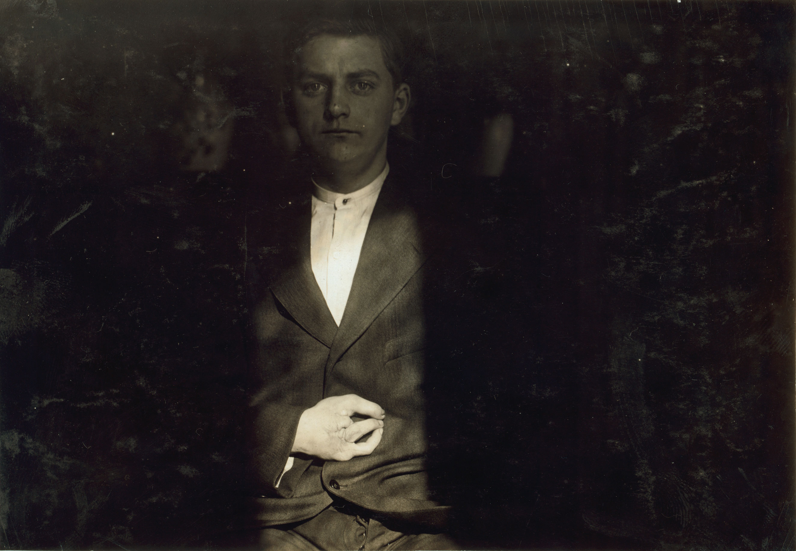 Case of Frank Wiegel, Brooklyn N.Y., injured after working 18 hours a day. He was injured at 1:55 A.M. January 18, 1914. Age 15 years. Employed by the Henry Bosch Paper Co., makers of wallpaper sample books. On Saturday, or rather Sunday morning at 1:55, Frank must have fallen asleep and in some way he knocked against the controlling pedal, and the next thing he knew his hand was caught in the machine. He sued the Co. for damages and after 2 years' litigation he received an award of $10,000 - $5,000 for each of 2 fingers which were amputated. The lawyer's fee has not yet been decided upon by the court. Jan. 1916. Brooklyn, New York.