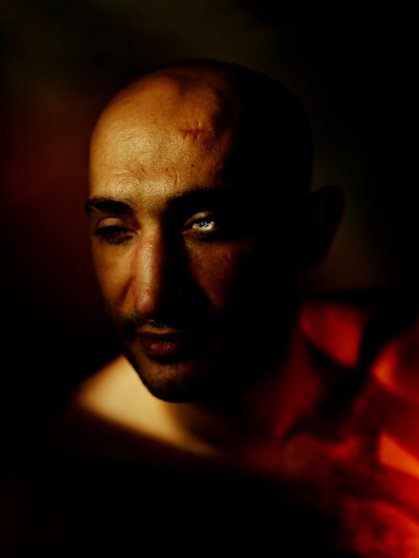 Ahmed Hararah, poses with his left emptied socket, wearing a glass eye on which is written in Arabic, 'Horreya' or 'freedom.' He lost both of his eyes fighting for the revolution. Cairo, Egypt, Oct. 28, 2015.