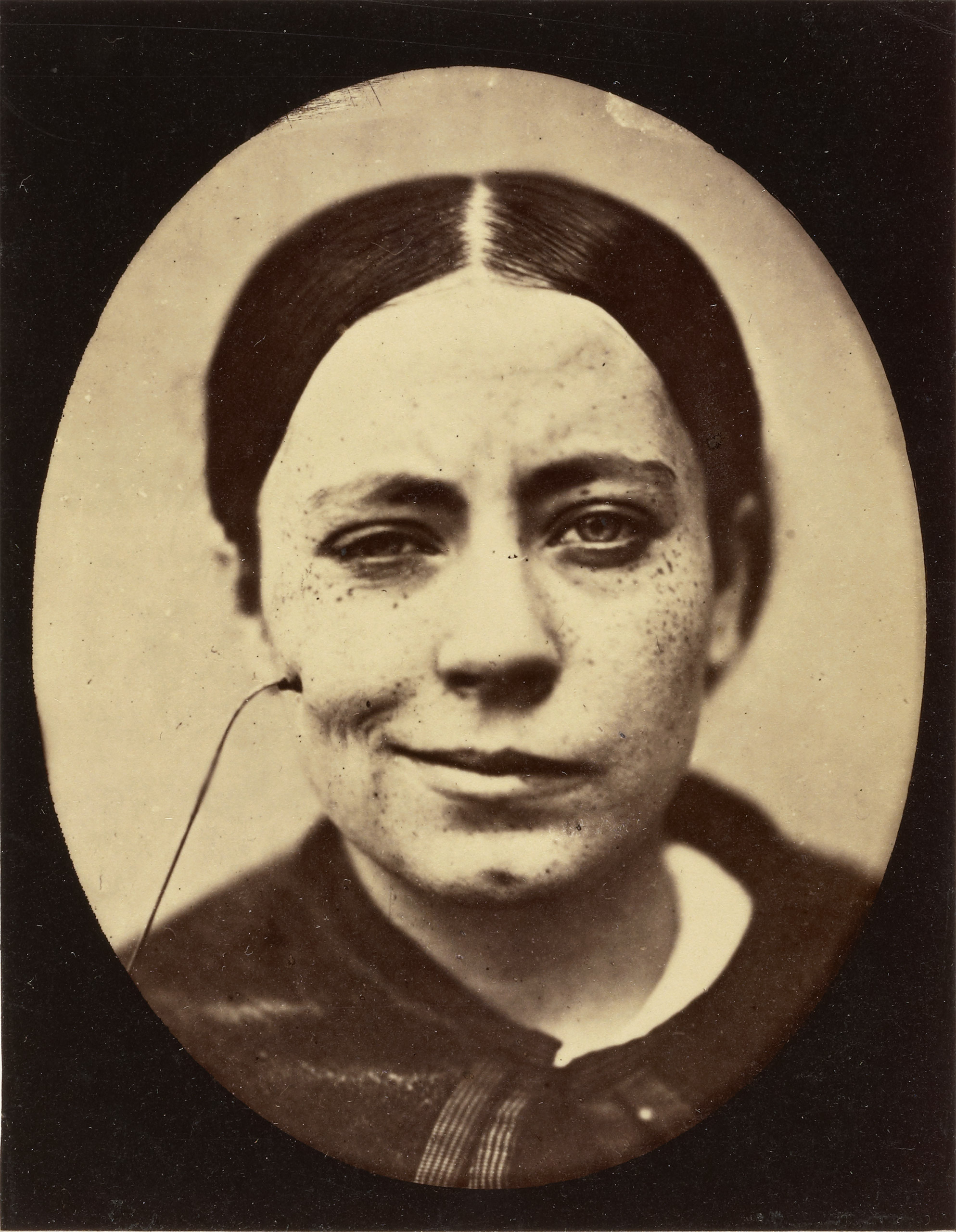 Electro-Physiologie Photographique (Portrait of a Woman), Fig. 35,                               1876The J. Paul Getty Museum, Los Angeles