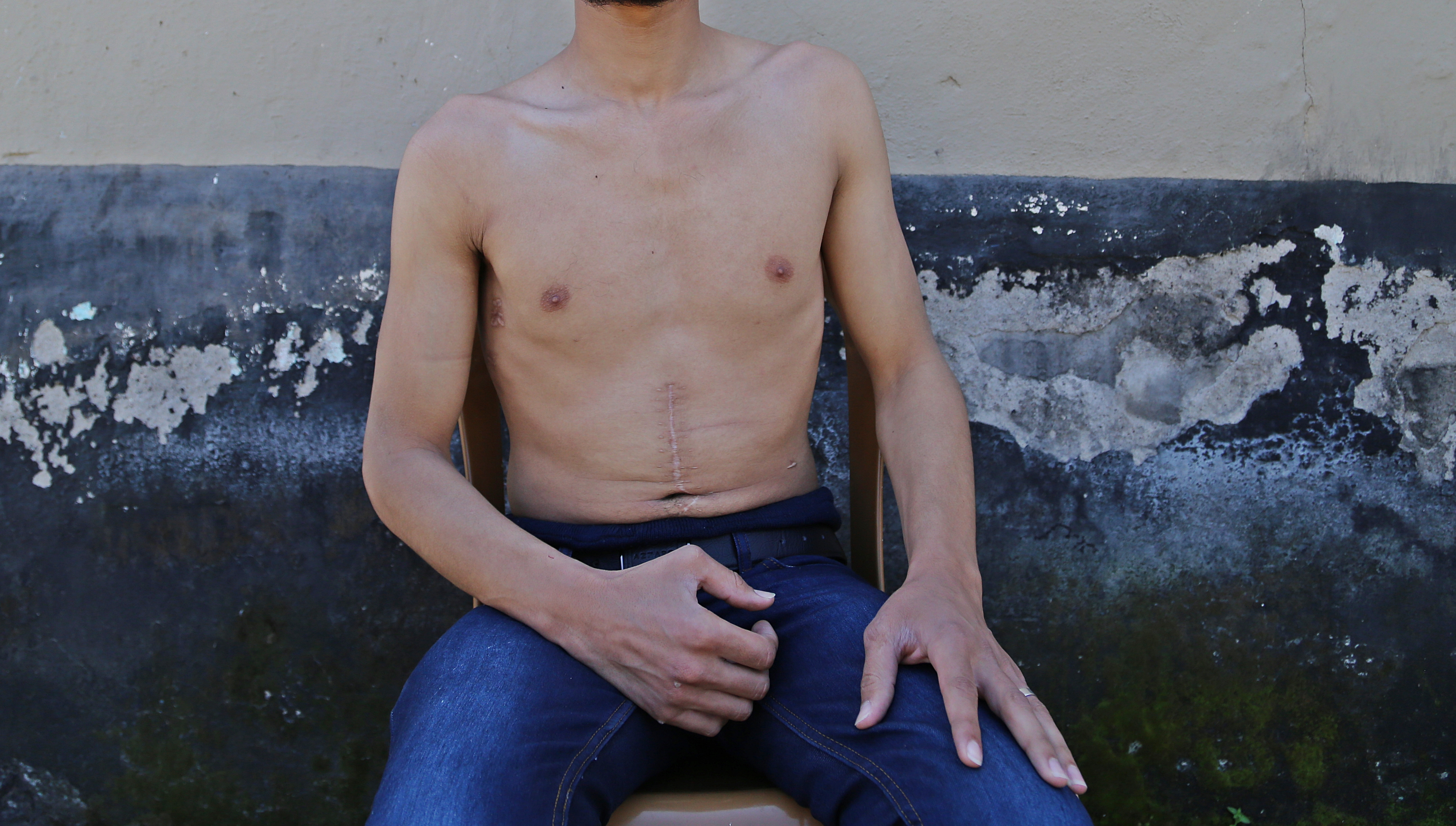 A man who says he was tortured in a Syrian prison is pictured in Hatay, Turkey, on March 29, 2014