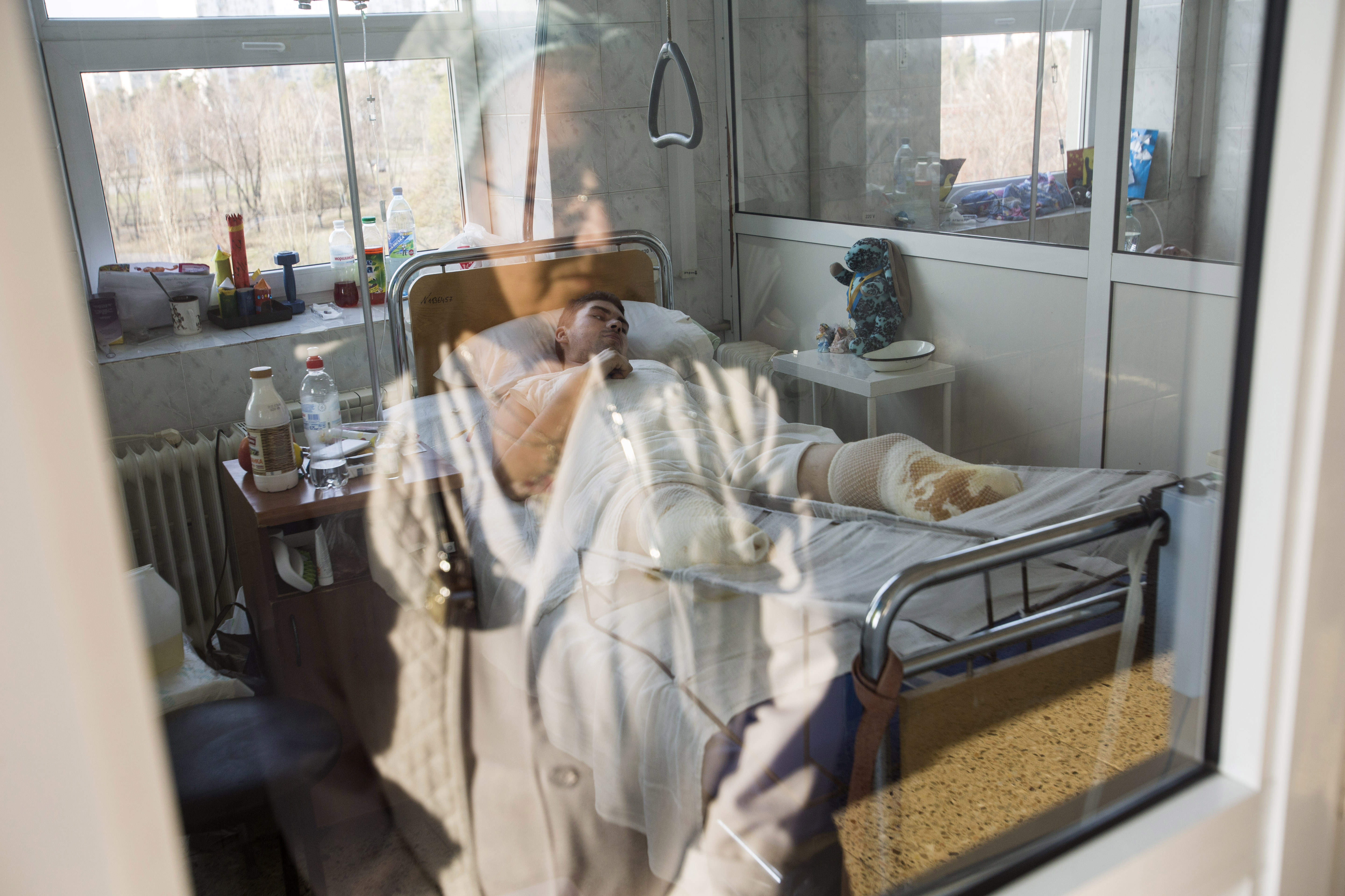 """Vadym Dovhoruk, 23, a Ukrainian Special Forces soldier, lays in the intensive care ward at the city burn center in Kiev, Ukraine, March 25, 2015. He was near Debaltseve when his unit was shelled on the second day of the armistice commonly referred to as Minsk II. Dovhoruk was wounded in the attack and also suffered severe frostbite after spending three days in a forest, before being detained by Russian-supported separatist forces. He is now a triple amputee. """"We were ambushed,"""" he said at the time. """"I was informed yesterday about all the guys. Two others and I went missing. One of them was buried yesterday. Another is in morgue in a Dnipropetrovsk, but his parents have not yet recovered his remains. They recognized him but are still waiting for the DNA test results. He was our commander."""""""