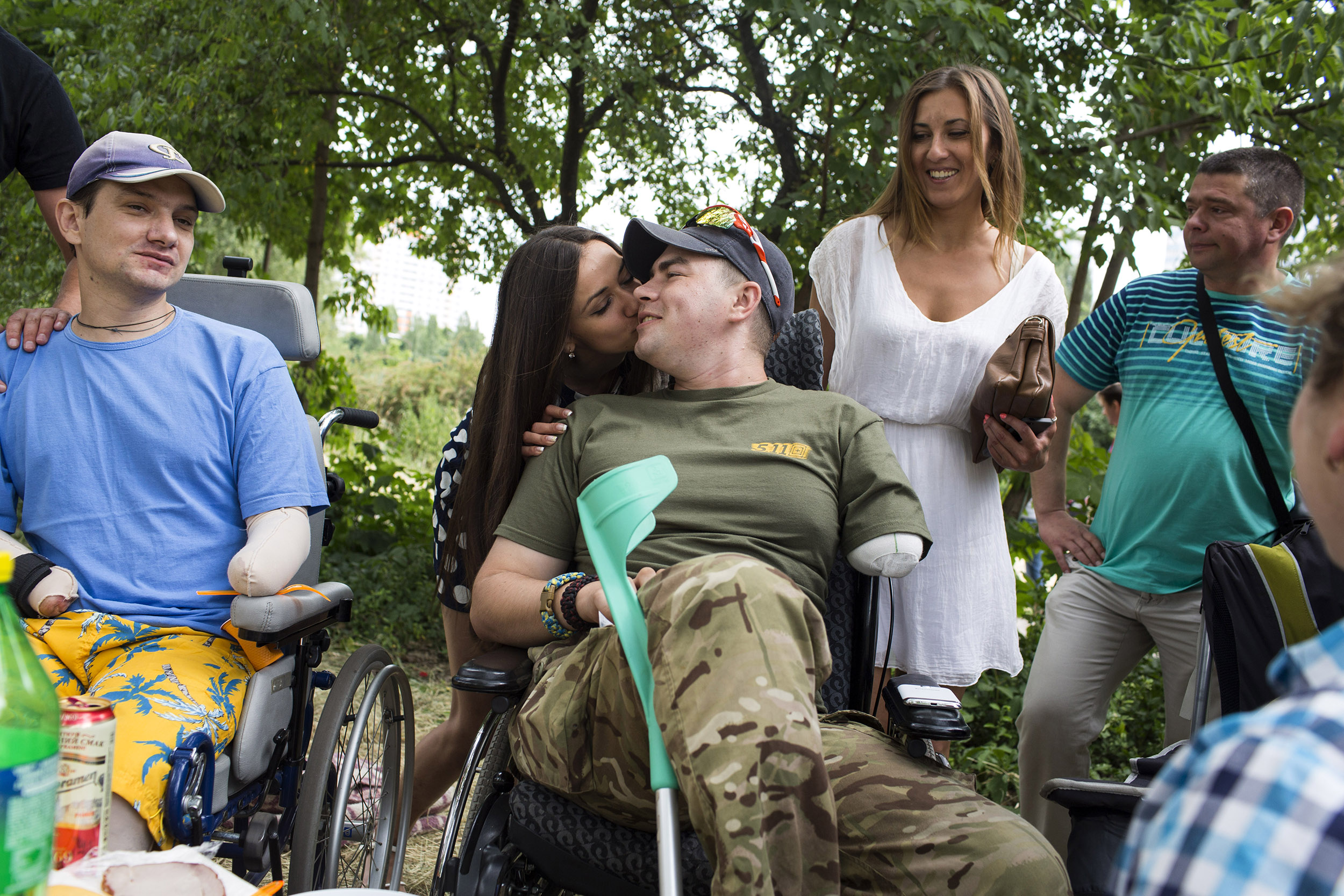 Dovhoruk celebrates his 24th birthday with friends and volunteers in a park near the city burn center where he is undergoing treatment in Kiev, June 21, 2015. As of February 2016, he is walking on prosthetic legs and training his arm to be fitted for a prosthetic. Dovhoruk is enrolled at a university and studying to become a psychologist; his intention is to work with combat veterans.