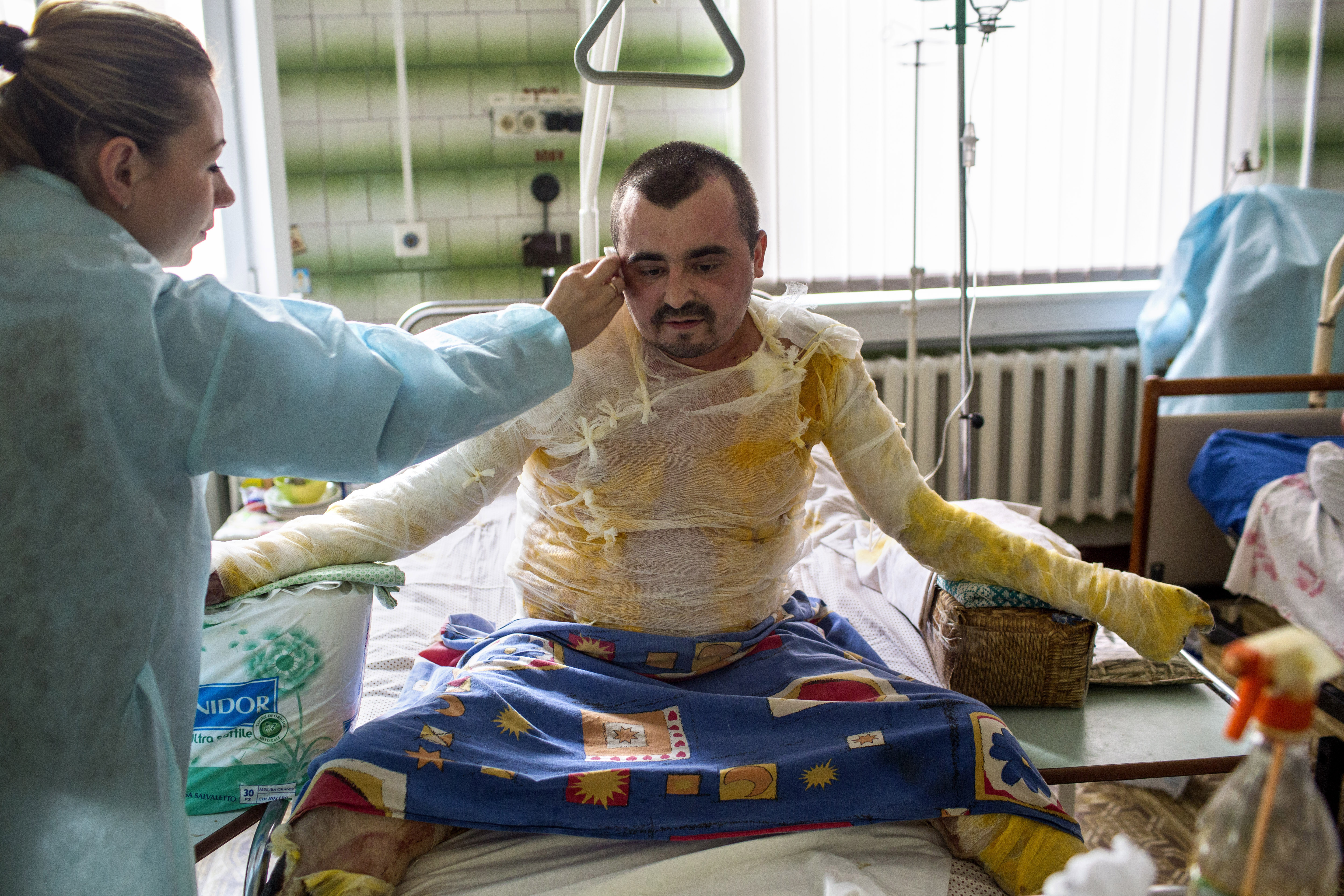 """Svitlana Kapusta, 29, wipes the brow of her husband, Sgt. Sergey Masan, a Ukrainian paratrooper from the southern region of Mykolaiv, as he recovers in a hospital in Dnipropetrovsk, Ukraine, Sept. 29, 2014. Masan sustained burns to 70% of his body and lost several fingers in a grad rocket attack in the village of Dyakovo, in Luhansk Oblast near the Russian border, in July 2014. He spent approximately three months in the warzone and asserted that his brigade was frequently fired upon with grad rockets launched from Russia into Ukraine. """"Our life has changed completely,"""" Kapusta said."""