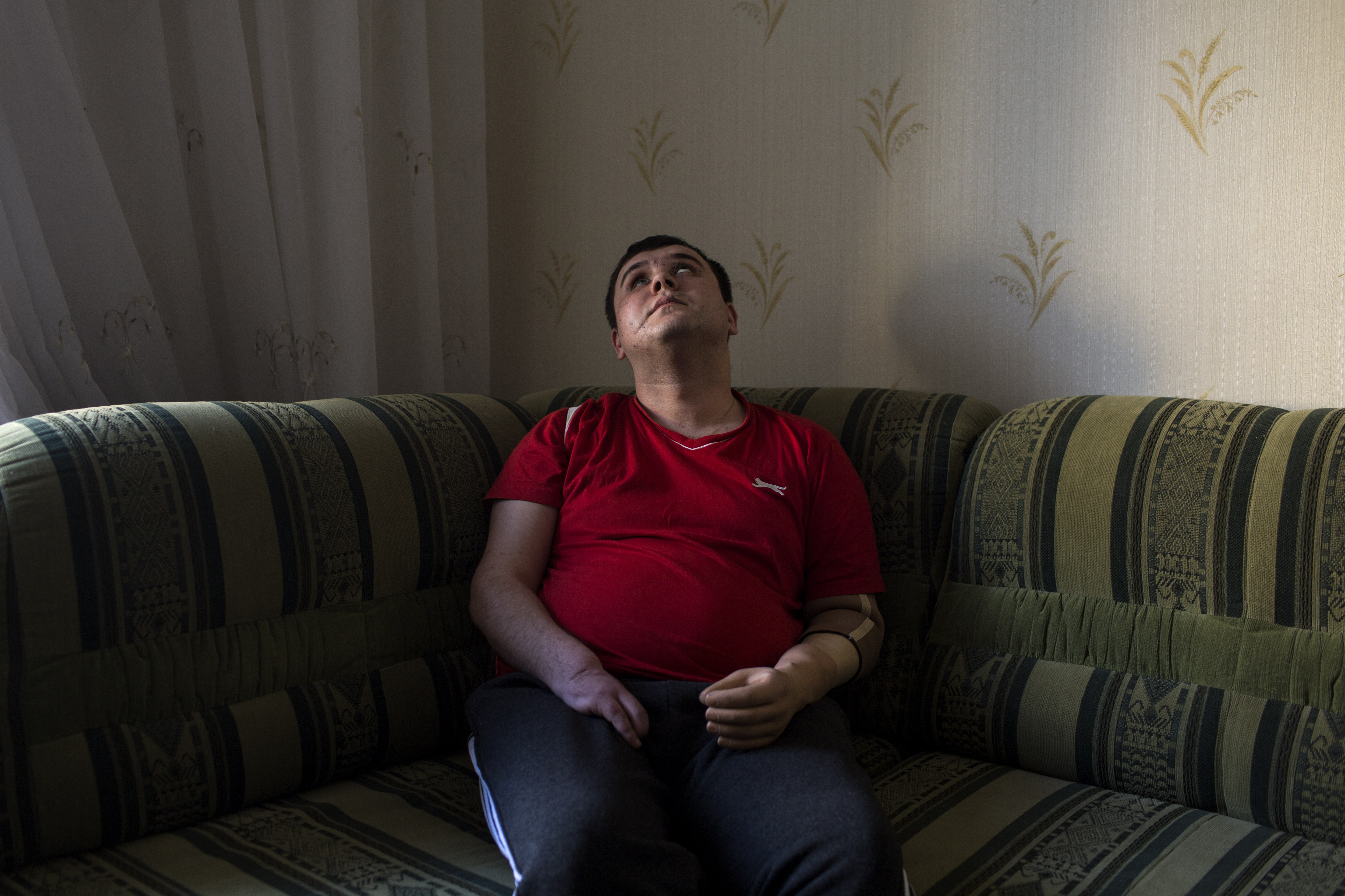"""Ivan Kushnerov, 25, rests on a couch in an apartment where he is staying temporarily in Kiev, Ukraine, March 4, 2015. Kushnerov, who lives in Zaporizhia, was severely wounded in Severodonetsk in November 2014 while serving in the 39th Territorial Defense Battalion of the Ukrainian army. His left hand and three fingers on his right hand were amputated, and he has problems with his vision and legs. He worked in advertising before the war and is currently studying part-time to become a journalist. """"I feel the pain. Sometimes it is phantom pain. I often have a headache, and my scars ache. This pain is always with me. But, if you feel pain, it means you are alive,"""" he said. """"I am now distracted by a lot of things. I require medical treatment, but I want to tighten my fists and go there [to war] because I am very worried about my guys. However, I realize that I will be only a burden for them now."""""""