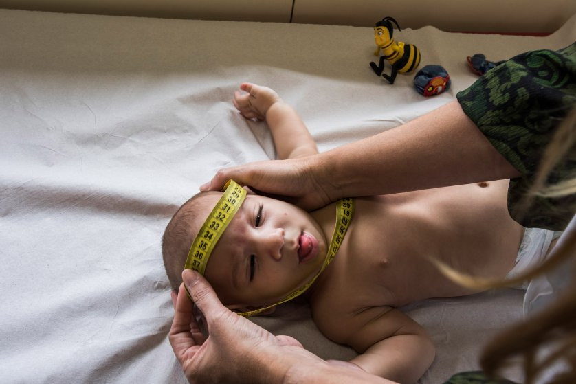 Dr. Vanessa Van Der Linden, a neurologist at the Associacao de Assistencia a Crianca Deficiente, measures the head of a baby with microcephaly in Recife, Brazil, Feb. 1, 2016. This center has seen 69 children with microcephaly so far.