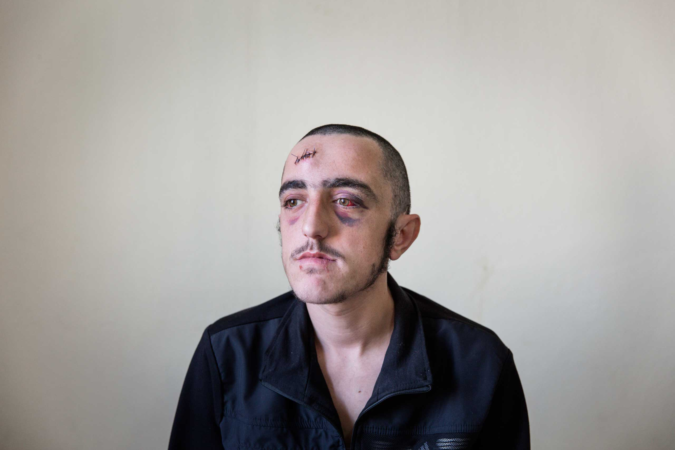 19-year-old Syrian rebel fighter Mamar Obin sits for a portrait at a small medical clinic inside Turkey where he was being treated for a head injury. He was hit by debris in what he said was a drone attack.