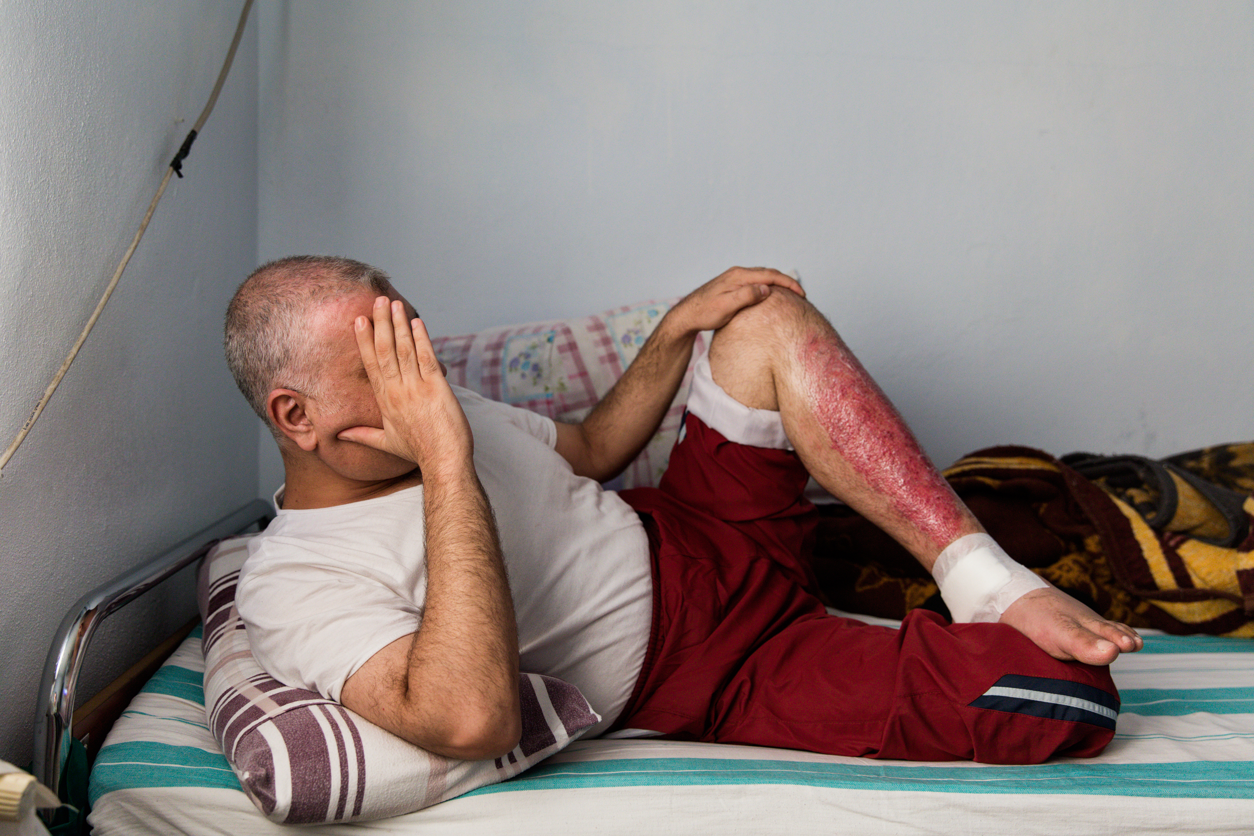 A Syrian from Idlib sits at a medical clinic in Turkey, where he is being treated for injuries from a Russian air strike