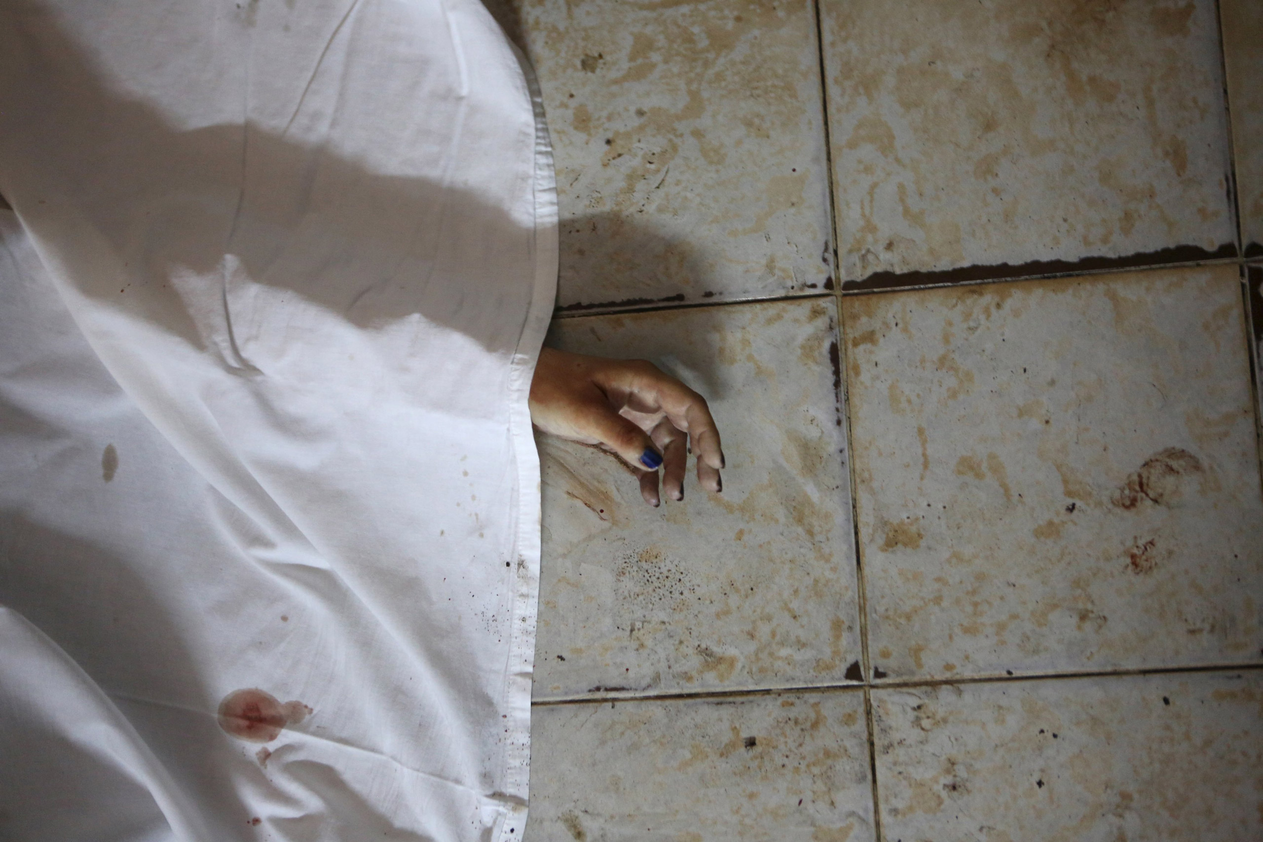 The hand of a person killed is seen after an attack in Grand Bassam, Ivory Coast, on March 13, 2016.